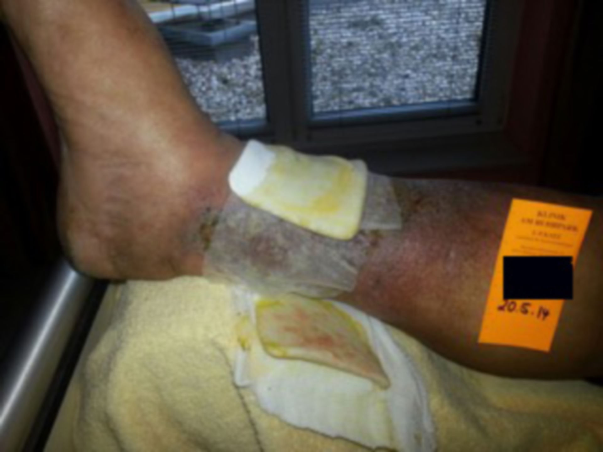 Ulcus cruris - open wound for a year