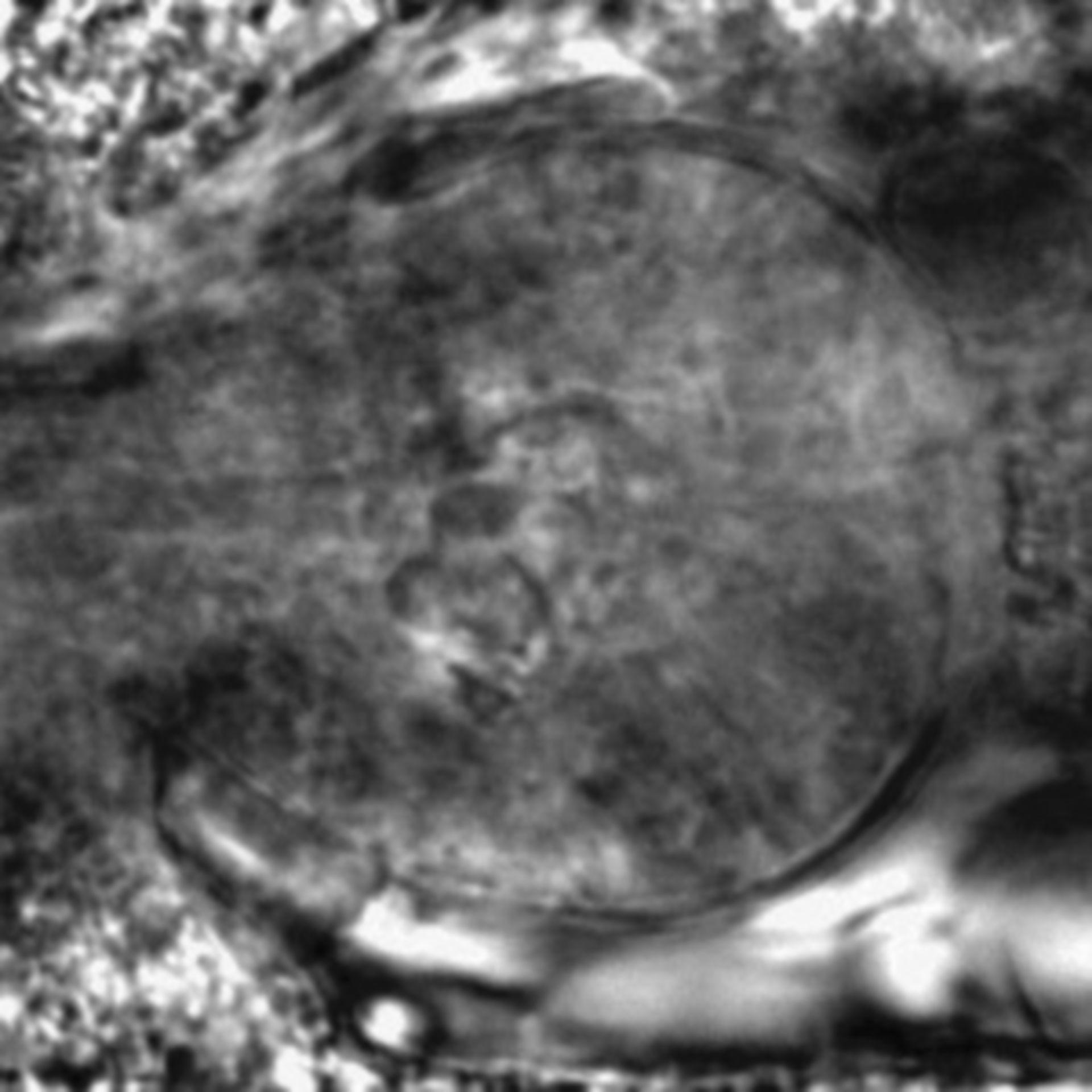 Caenorhabditis elegans - CIL:2228