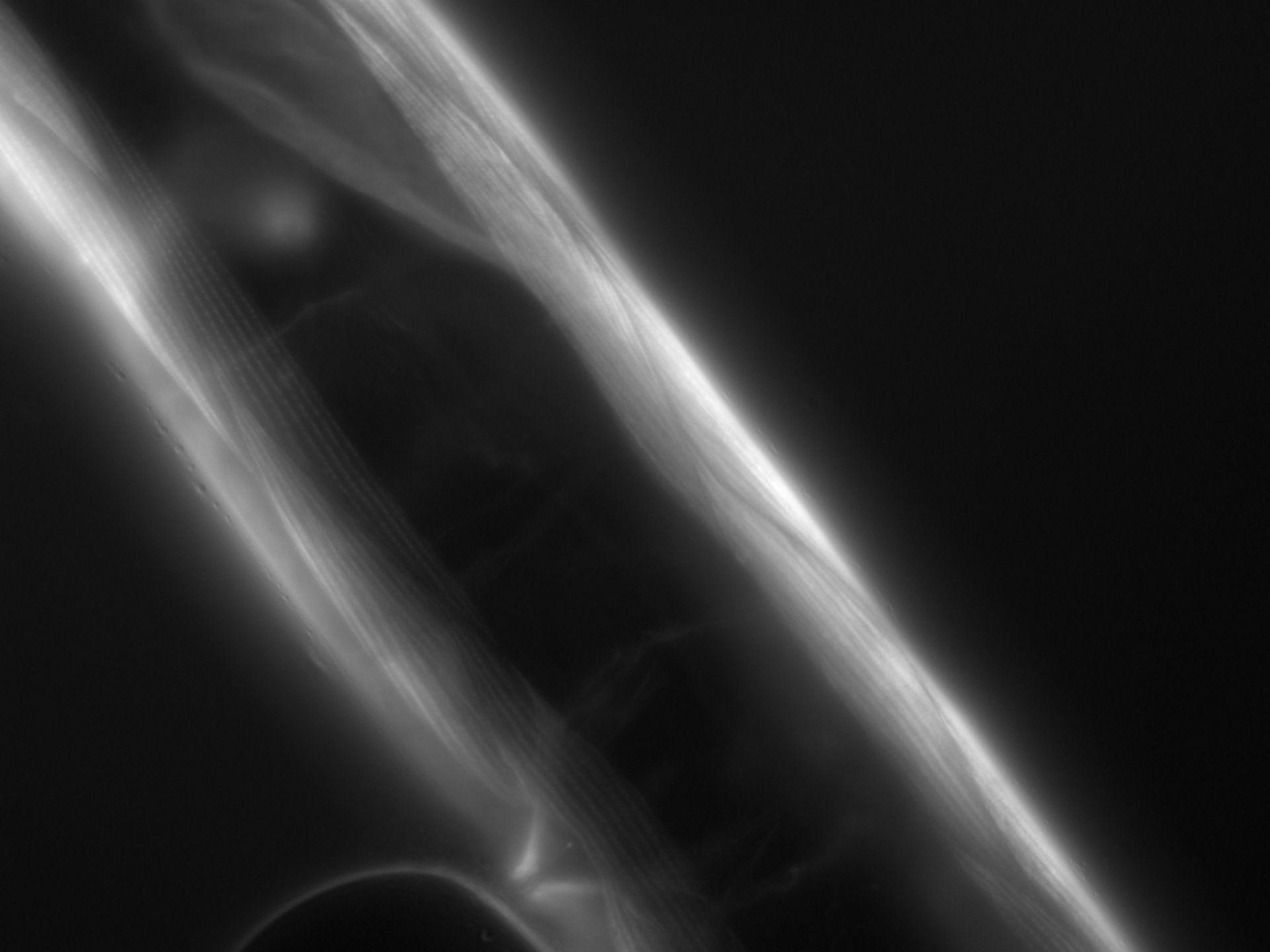Caenorhabditis elegans (Actin filament) - CIL:1072