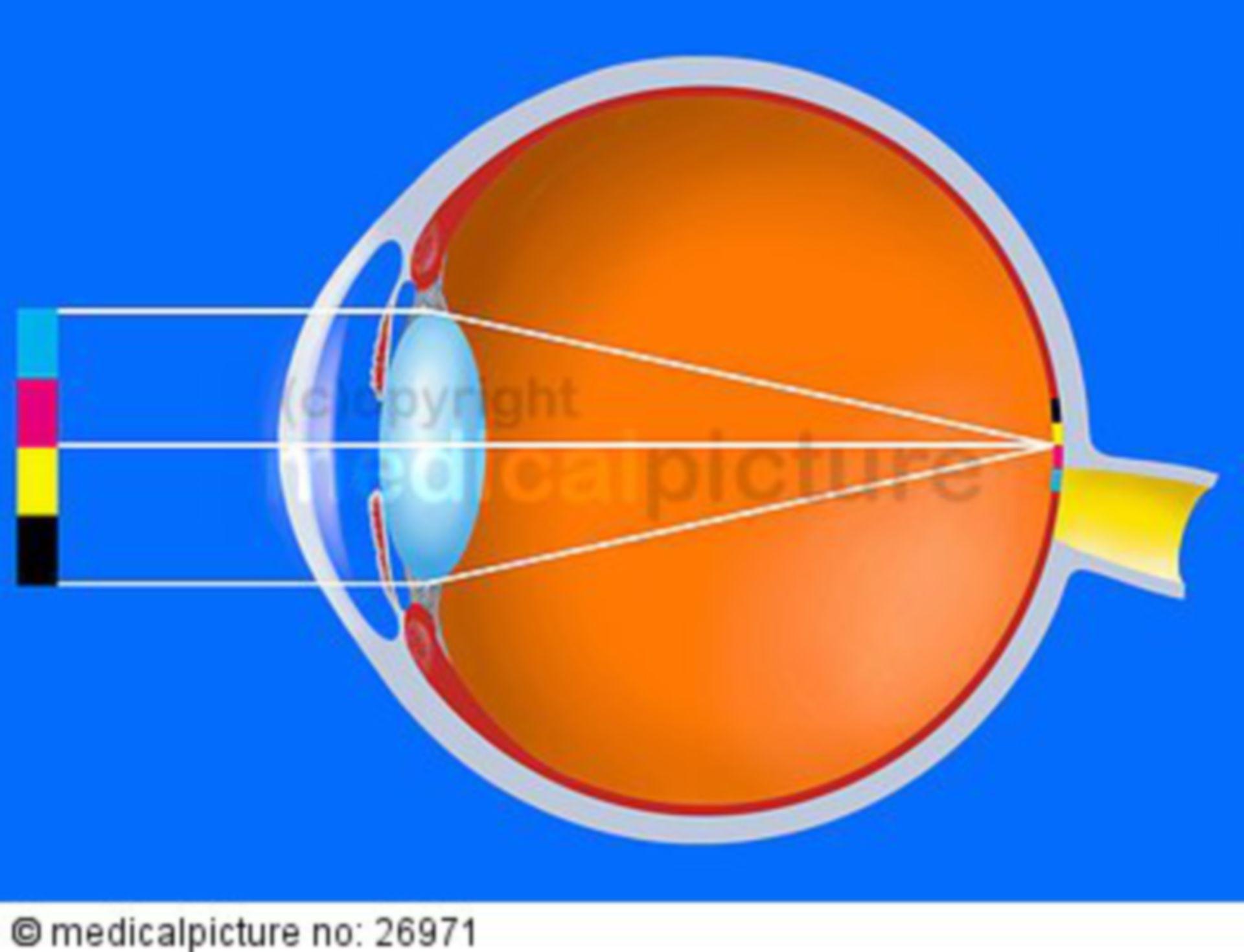 Normalsichtigkeit (Emmetropie)