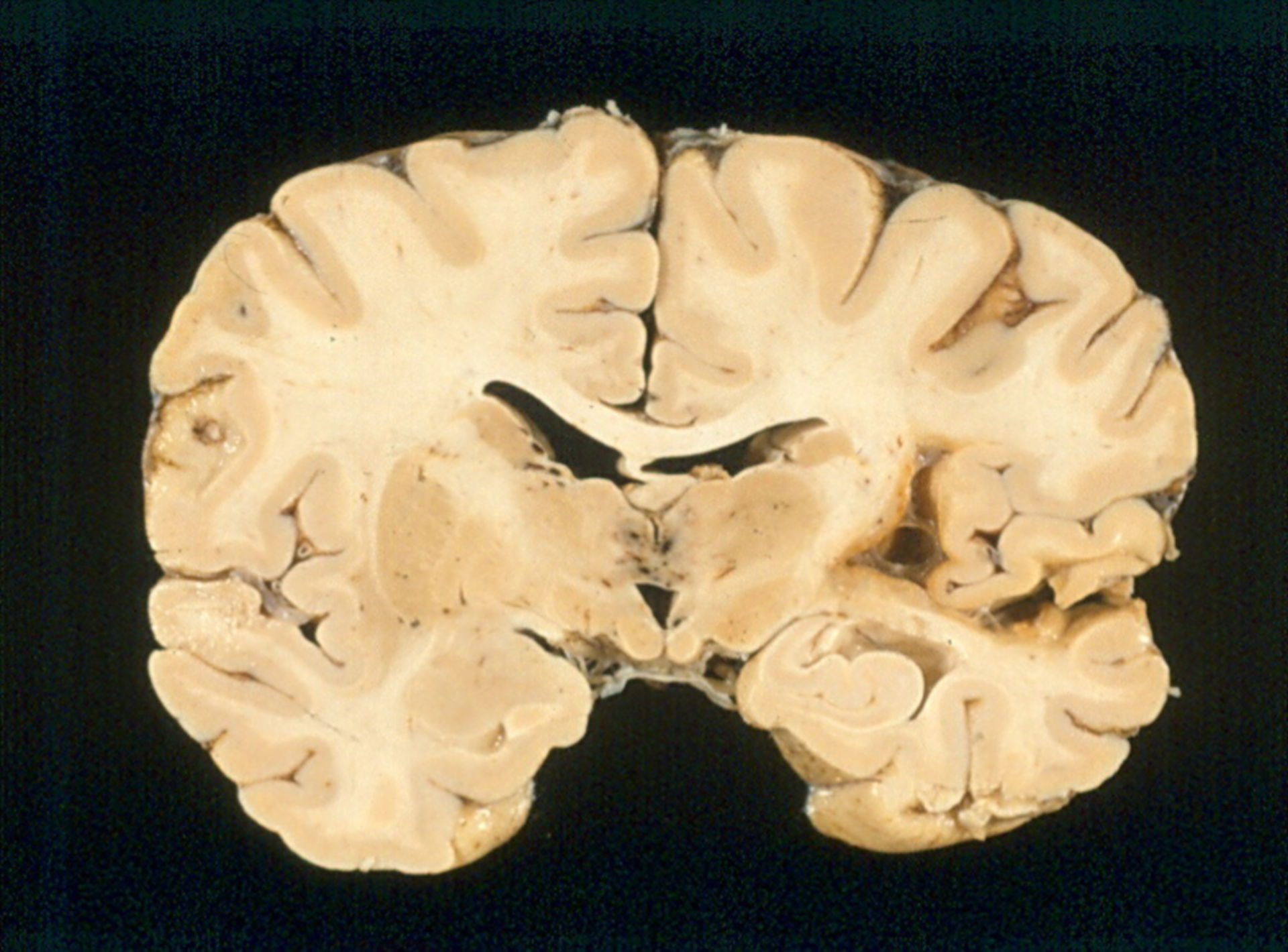 Wernicke-Enzephalopathie
