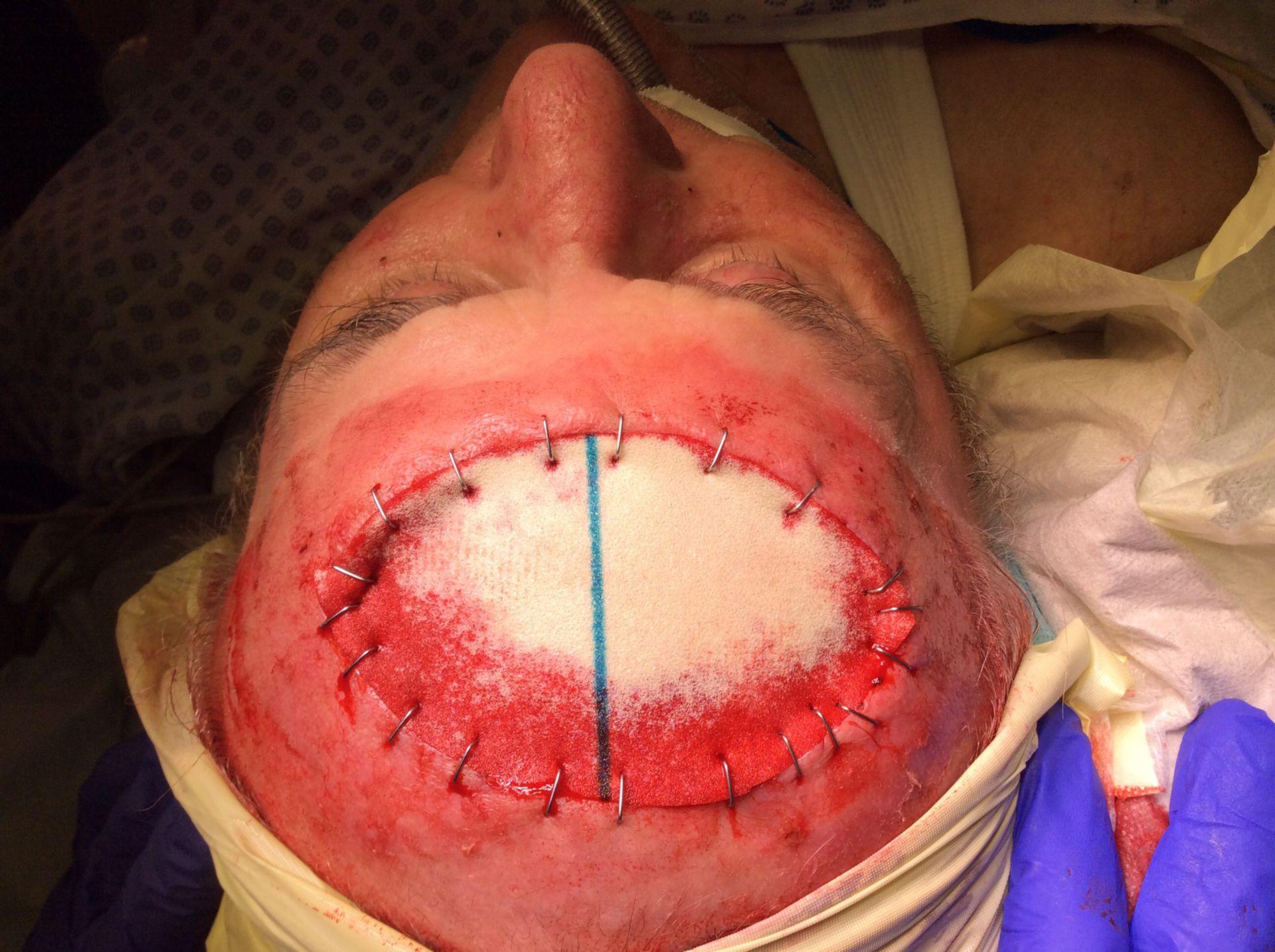 Plattenepithelkarzinom der Kopfschwarte