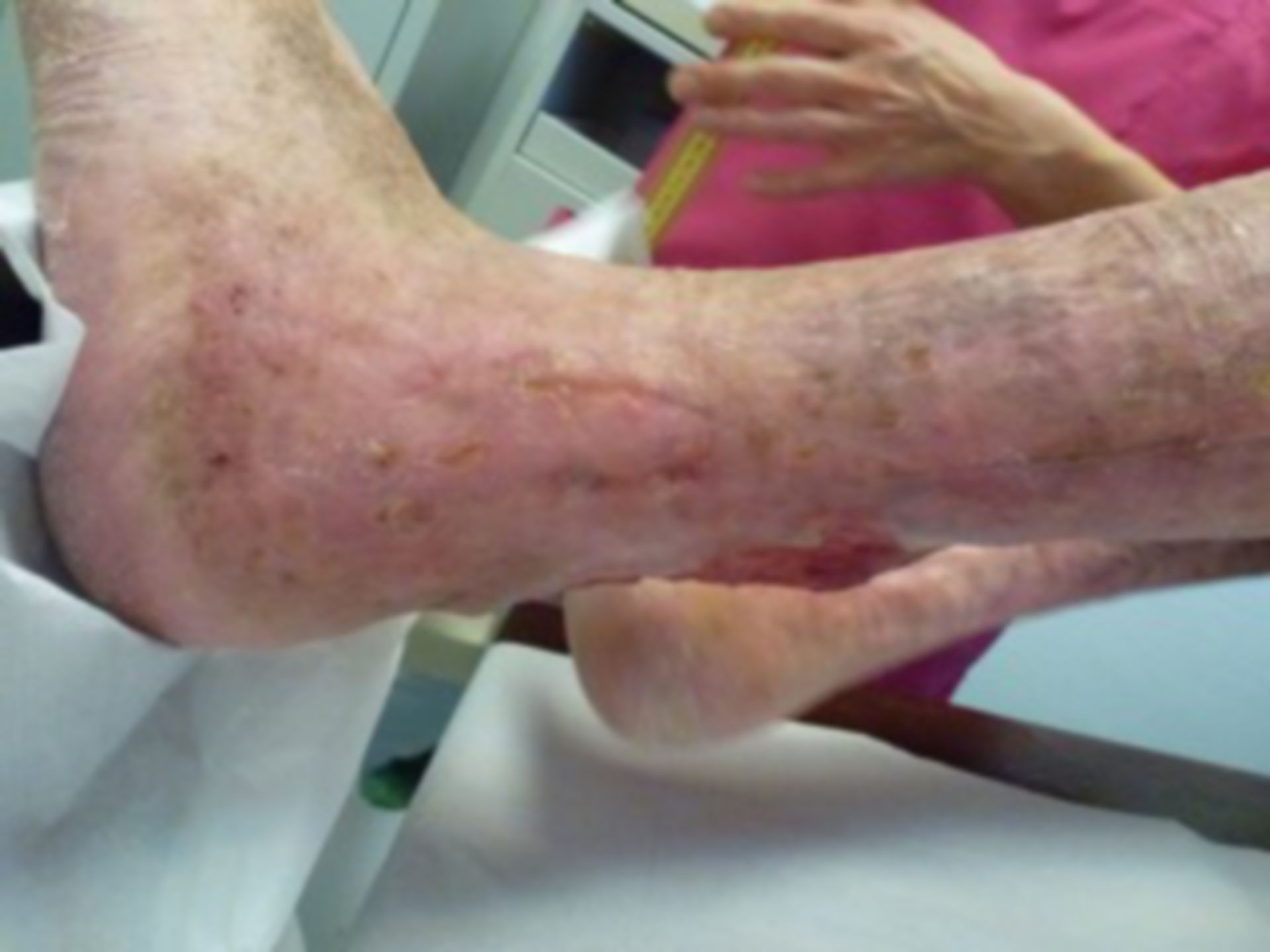 Úlcera de la pierna - abierta por 40 años (24)