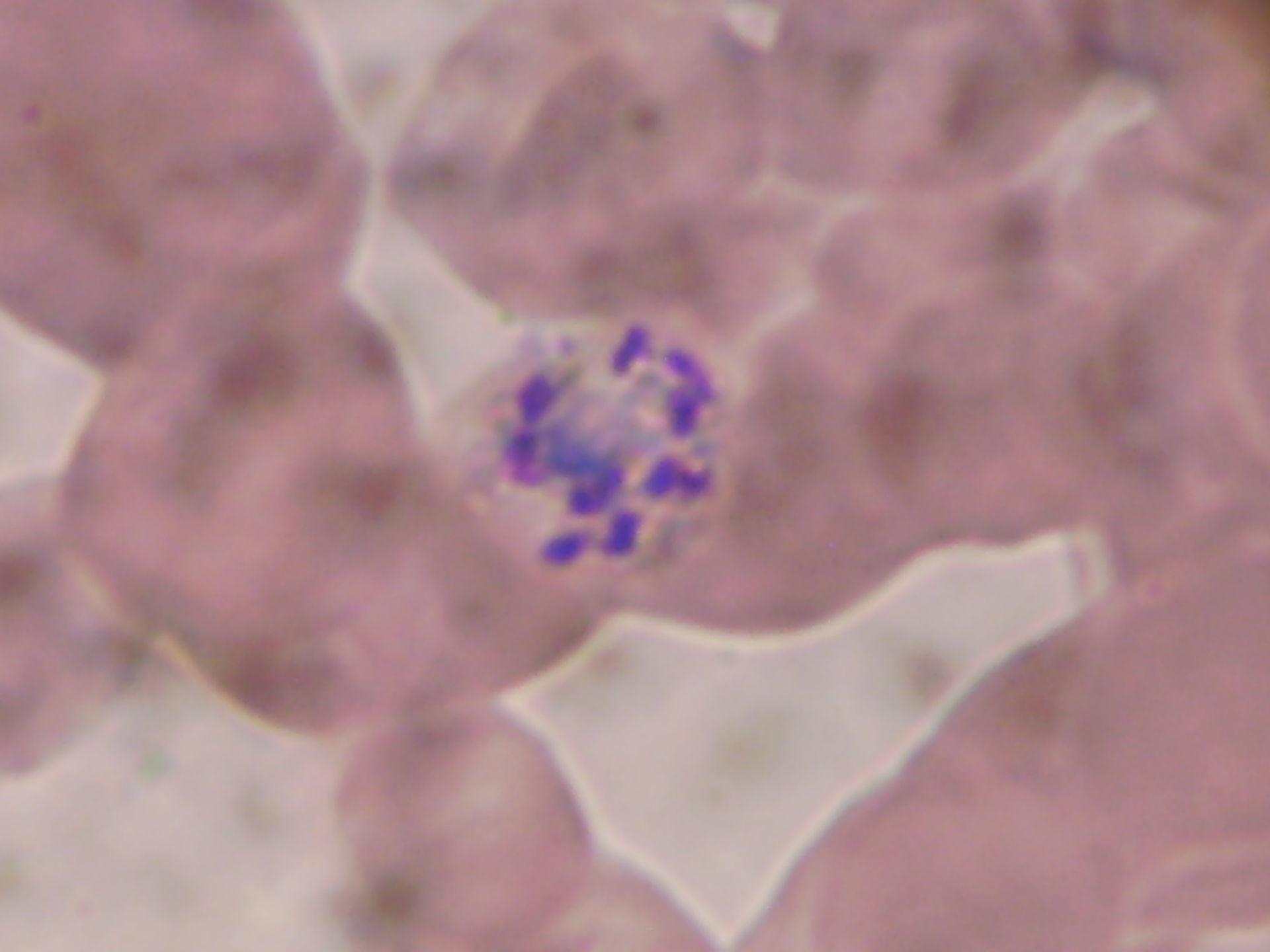 Plasmodium Malariae Schizont e