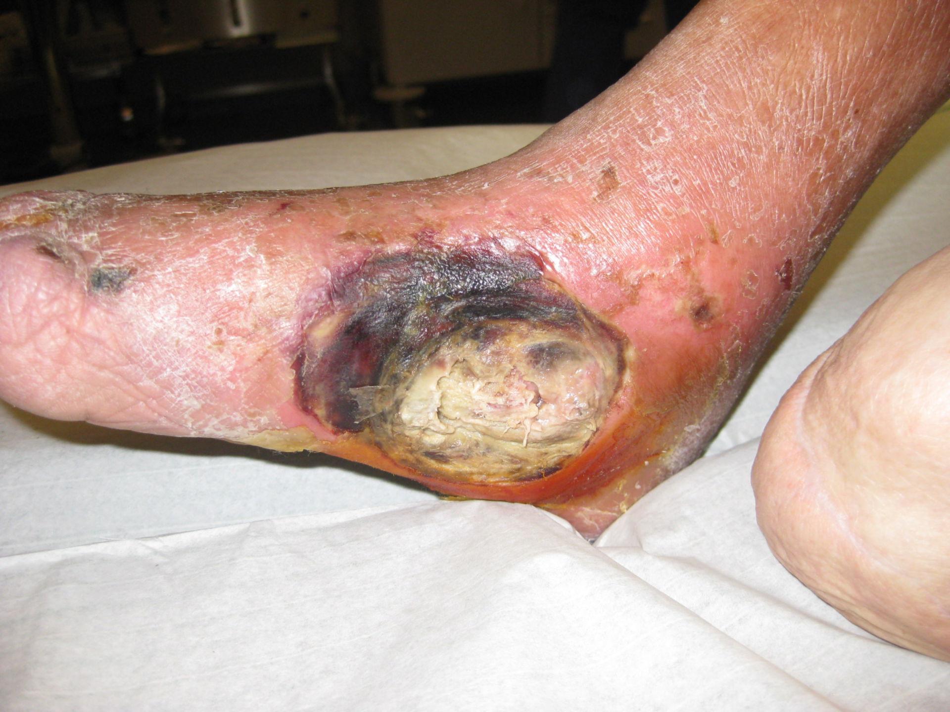 Arteriopativa occlusiva di grado IV, gamba destra