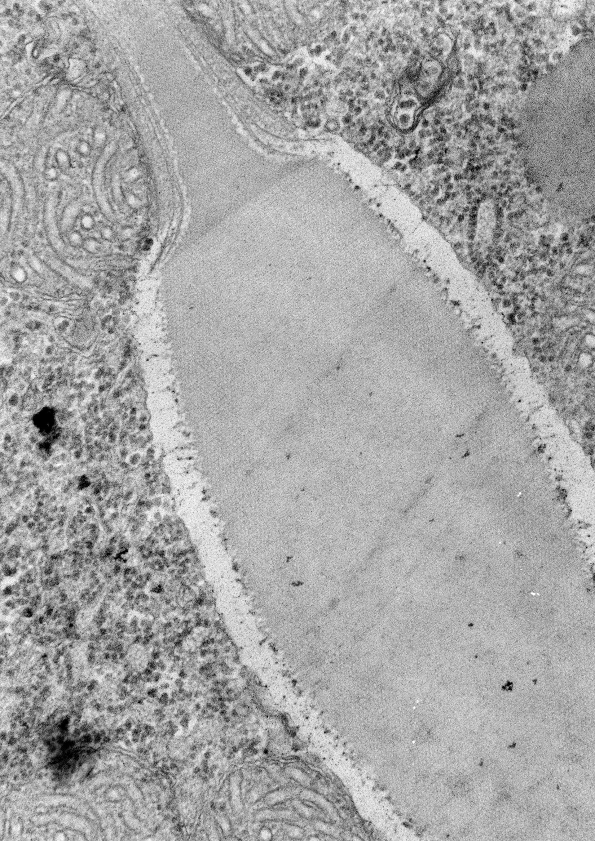 Paramecium caudatum (organello di membrana) - CIL:39154