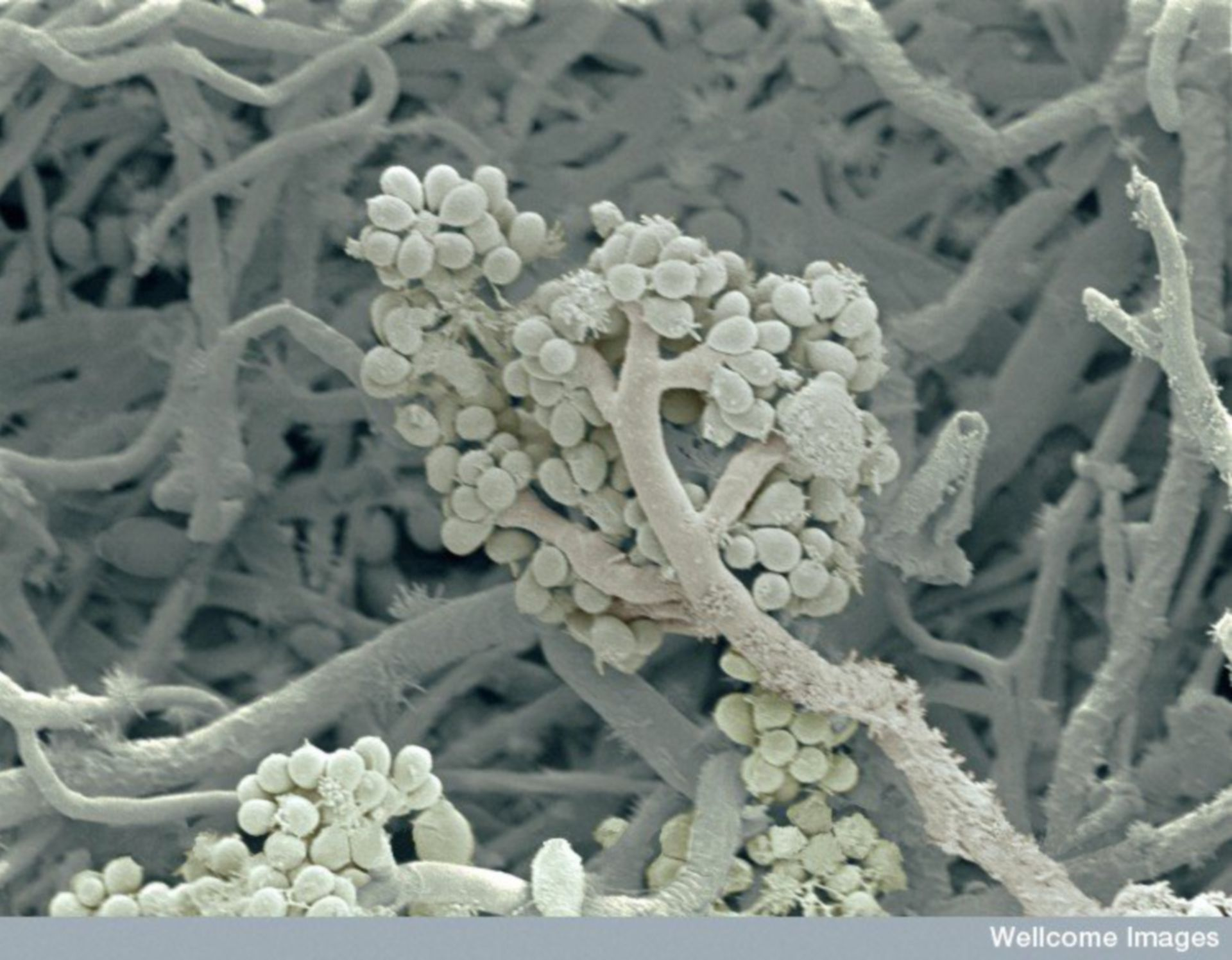 Image of the Week - May 23, 2016 - CIL:38927 - http://www.cellimagelibrary.org/images/38927