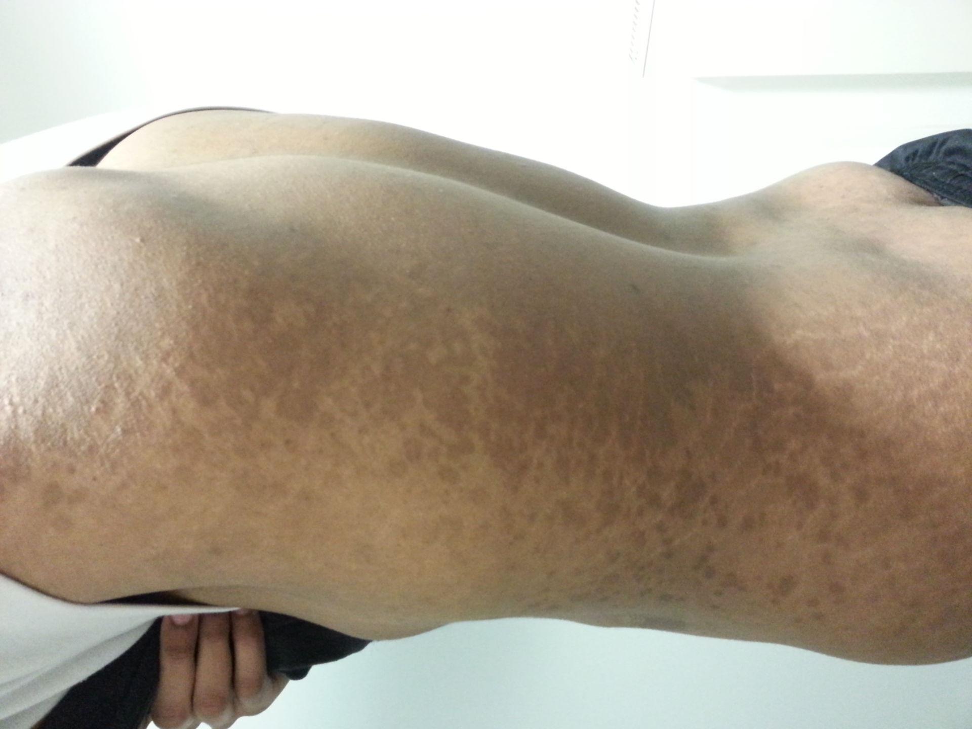 Unclear/unexplained skin disease