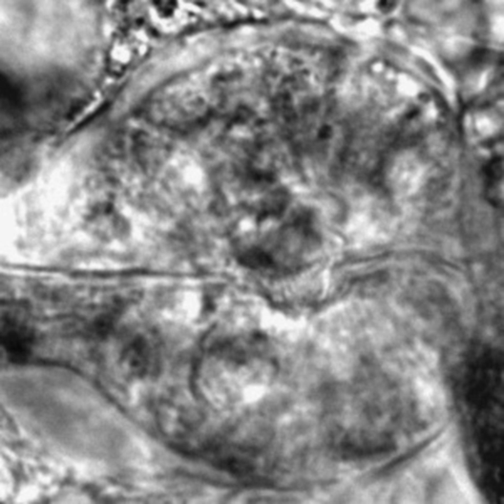 Caenorhabditis elegans - CIL:2600