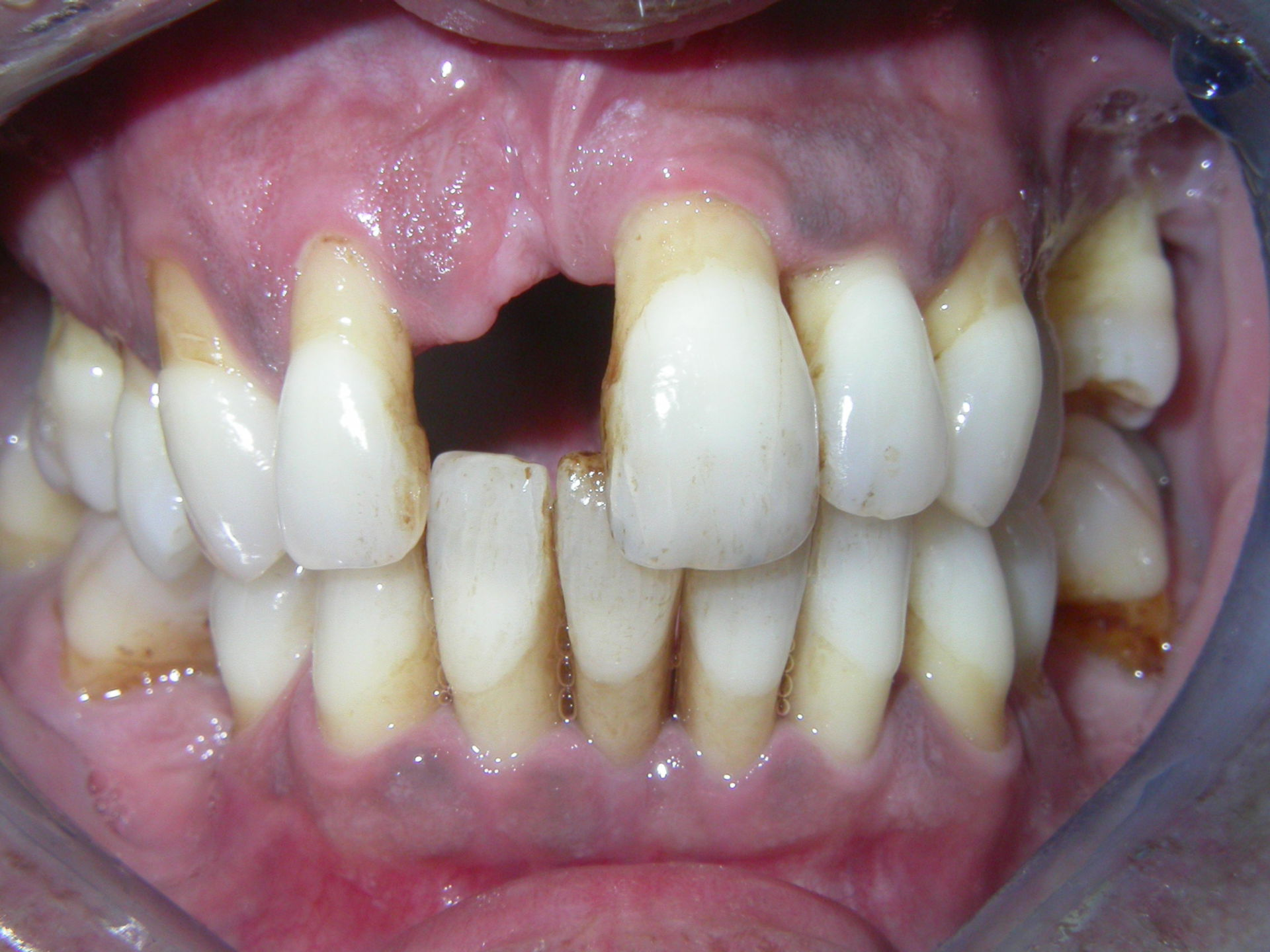 Central incisor lost