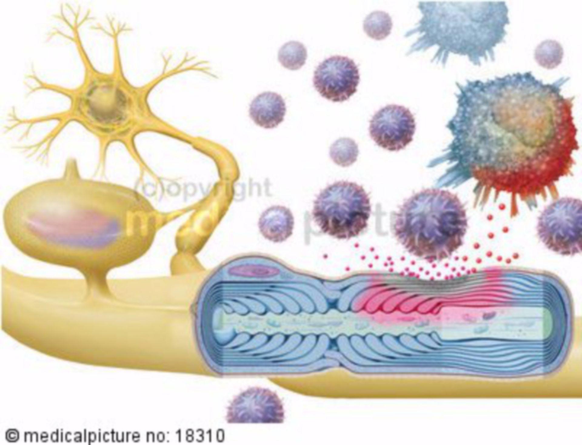 Multiple sclerosis (MS) - Encephalomyelitis disseminata