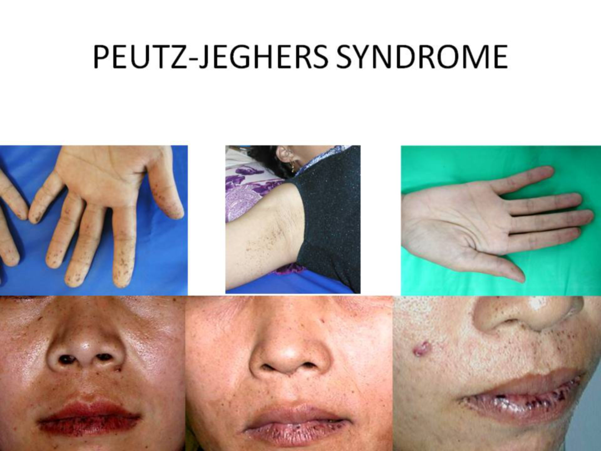 Peutz-Jeghers-Syndrom