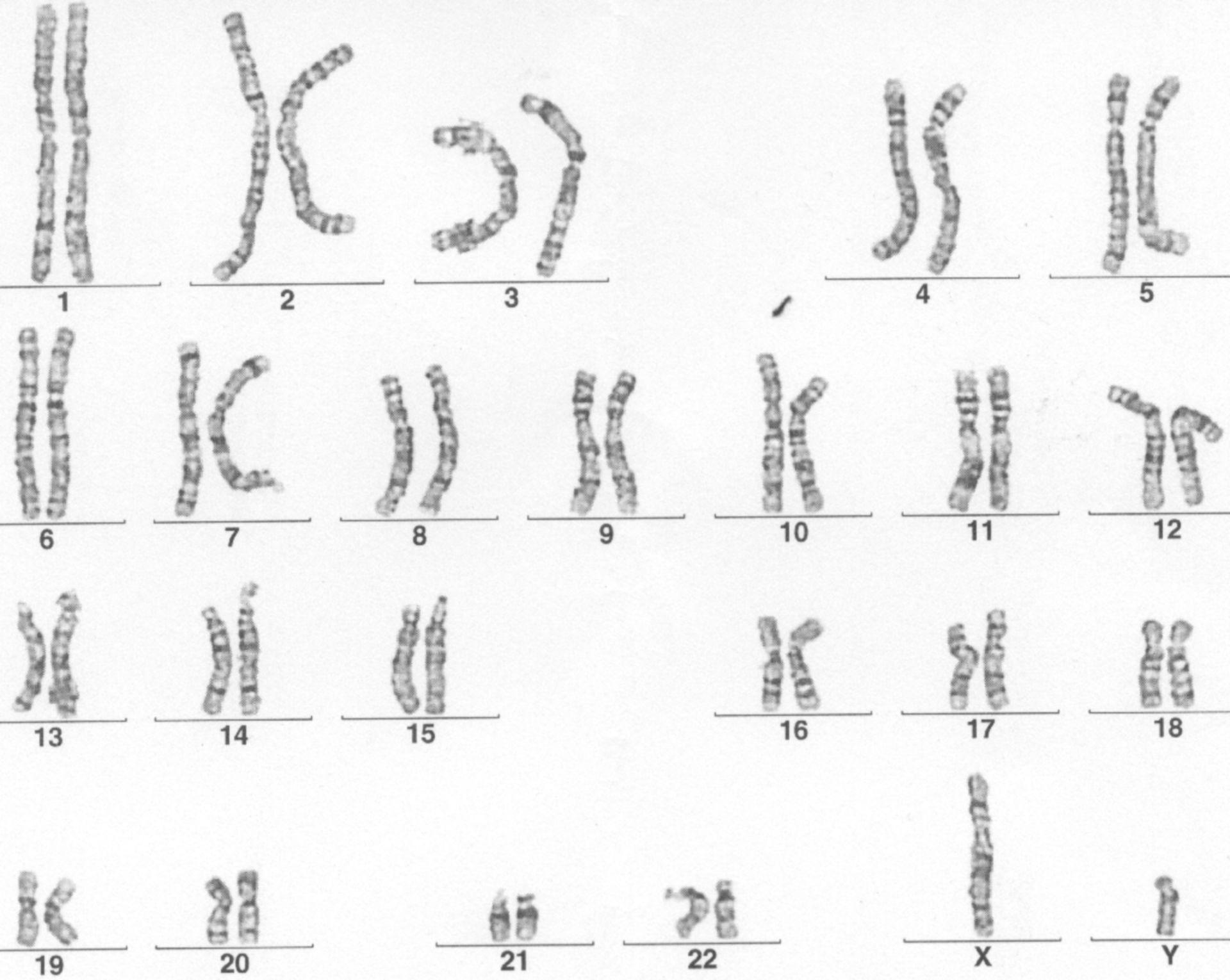 Genom-Scan (Karyogramm)