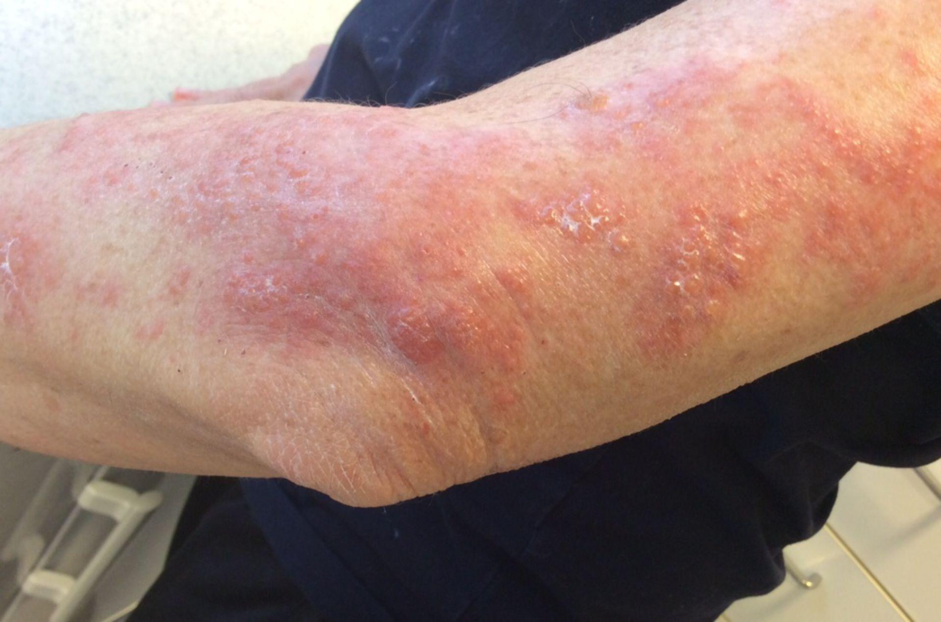 Herpes zoster Infektion des linken Armes