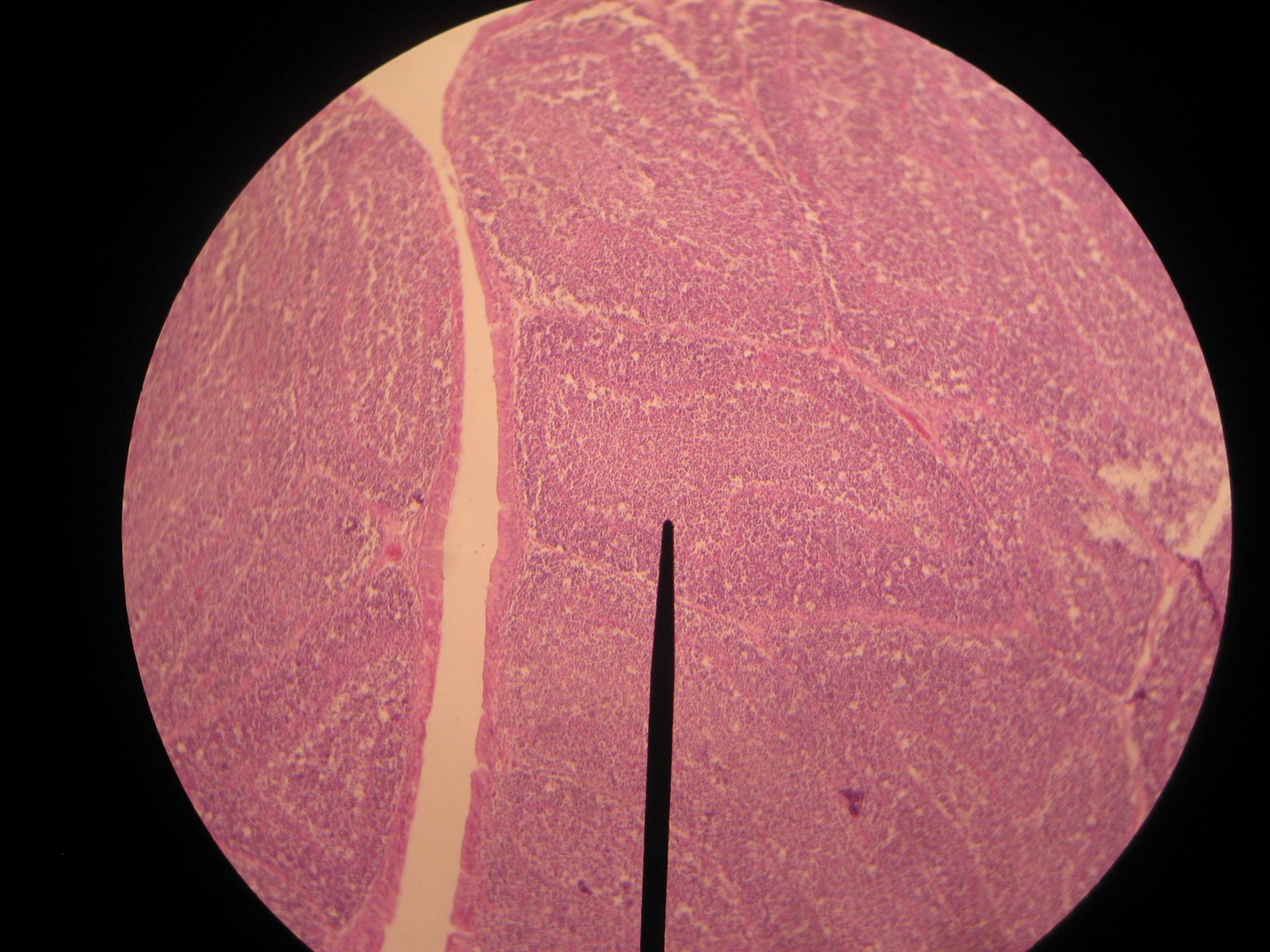 Bursa cloacalis of a chicken - 10 days - lymph node