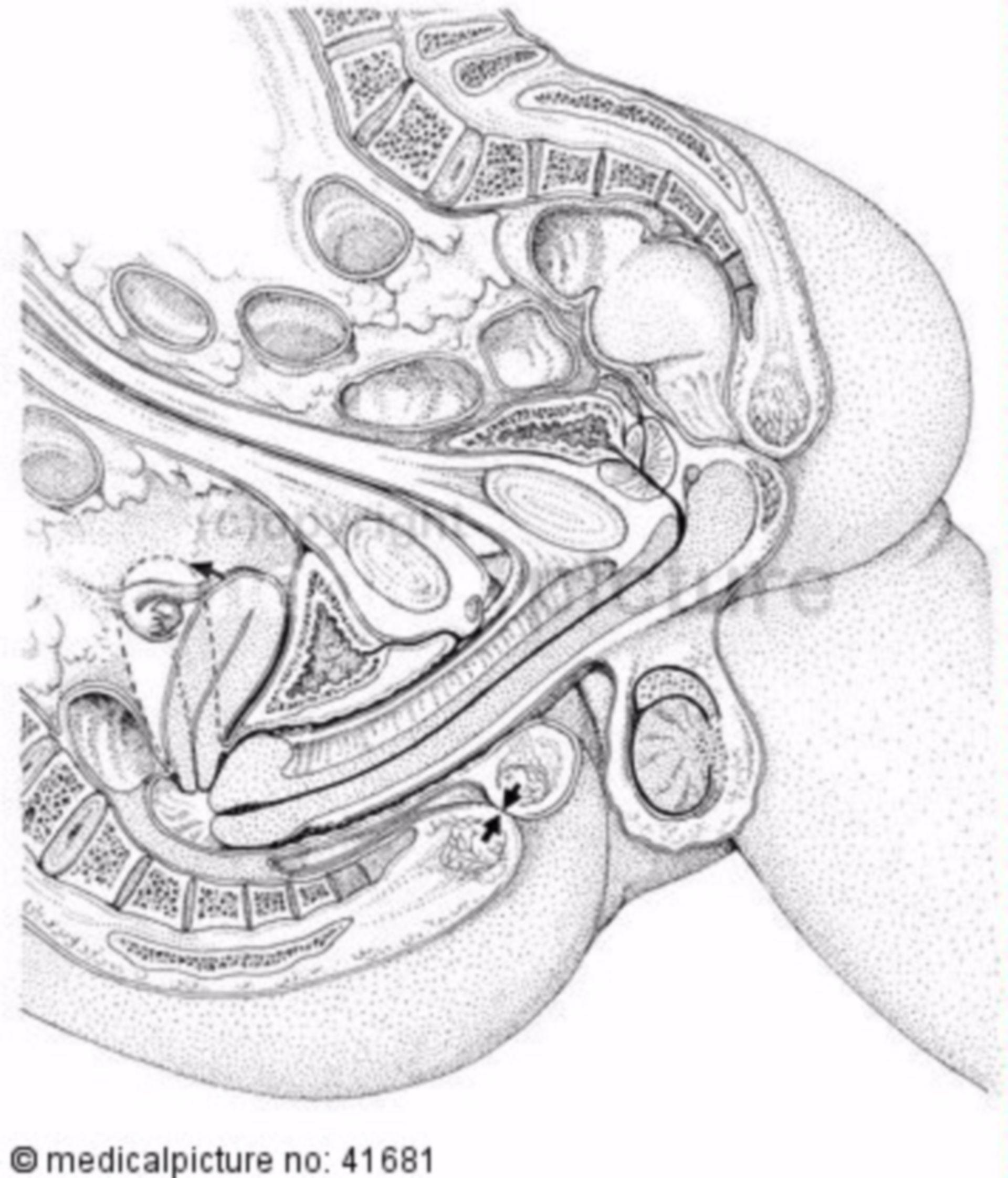 Sección sagittal durante la copulación