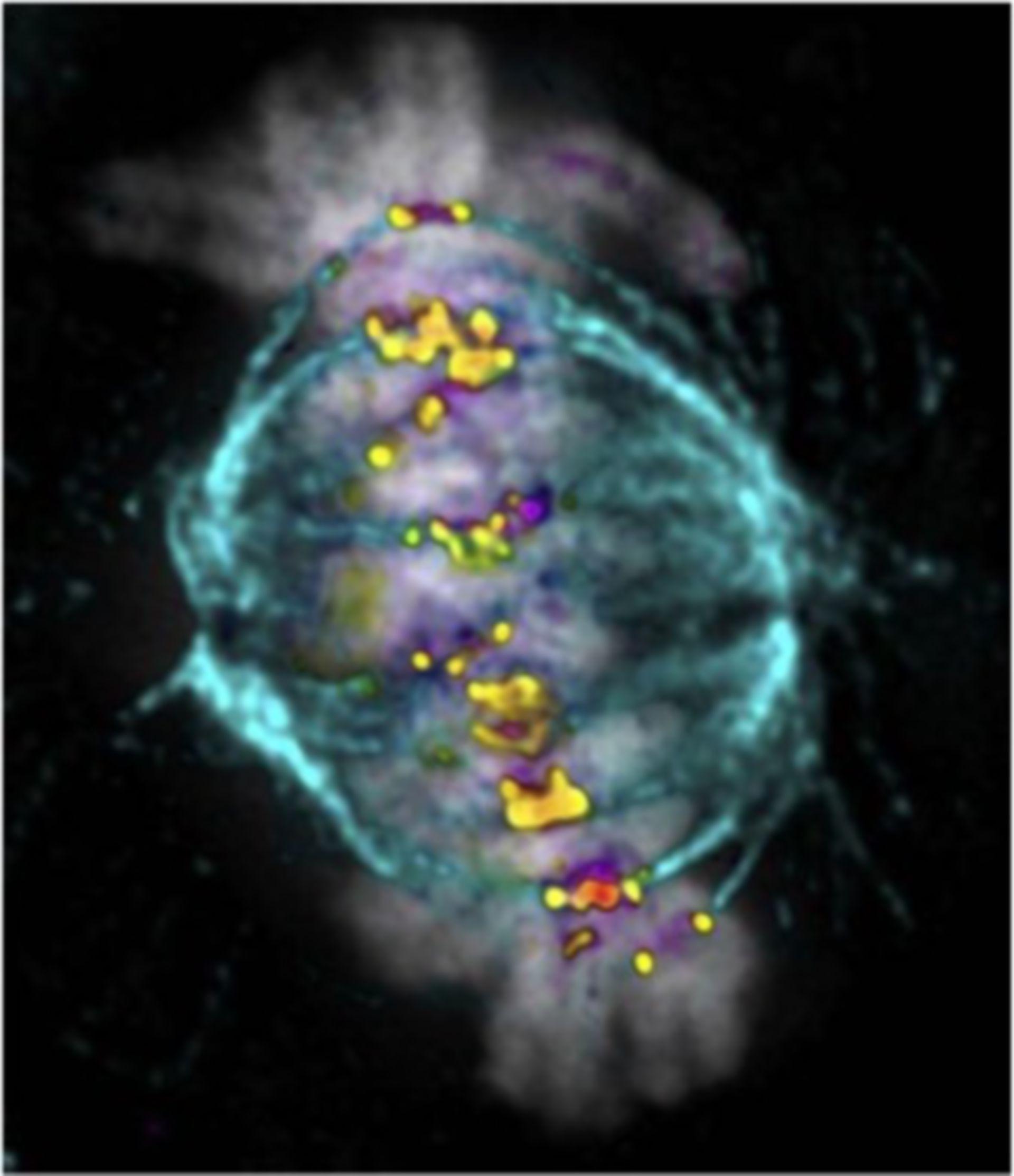 HeLa-Zelle in der Metaphase