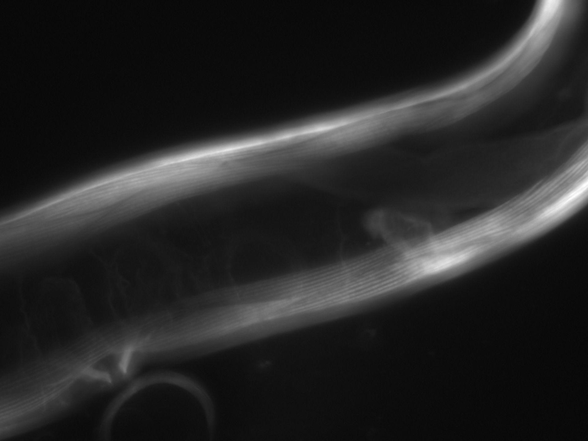 Caenorhabditis elegans (Actin filament) - CIL:1062