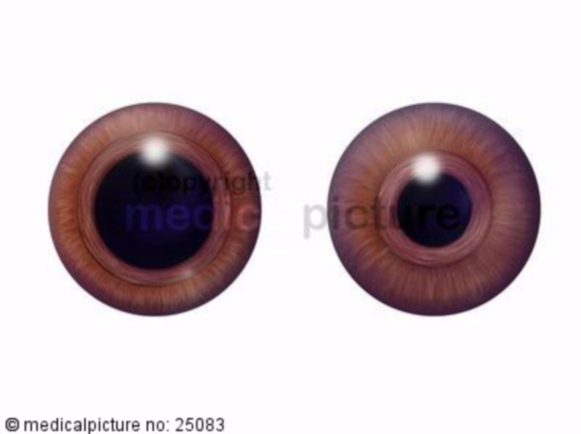 Pupil, pupil dilation, pupil constriction