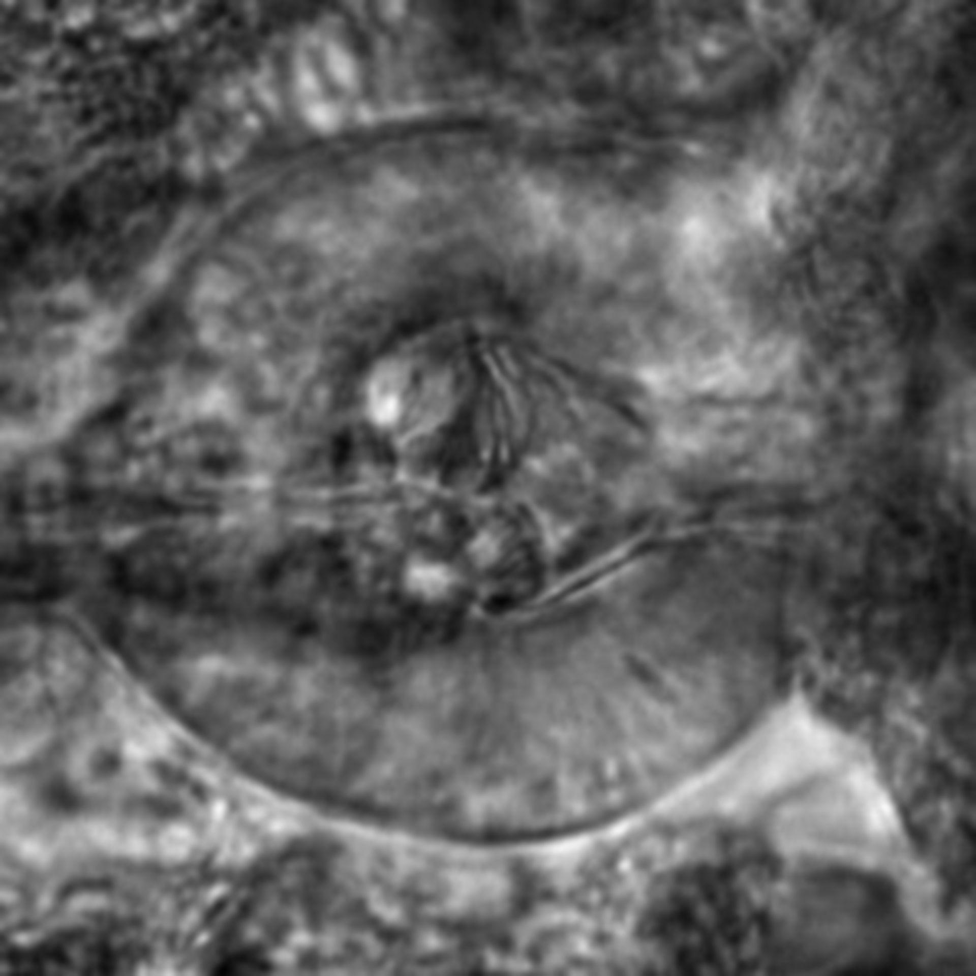 Caenorhabditis elegans - CIL:2710