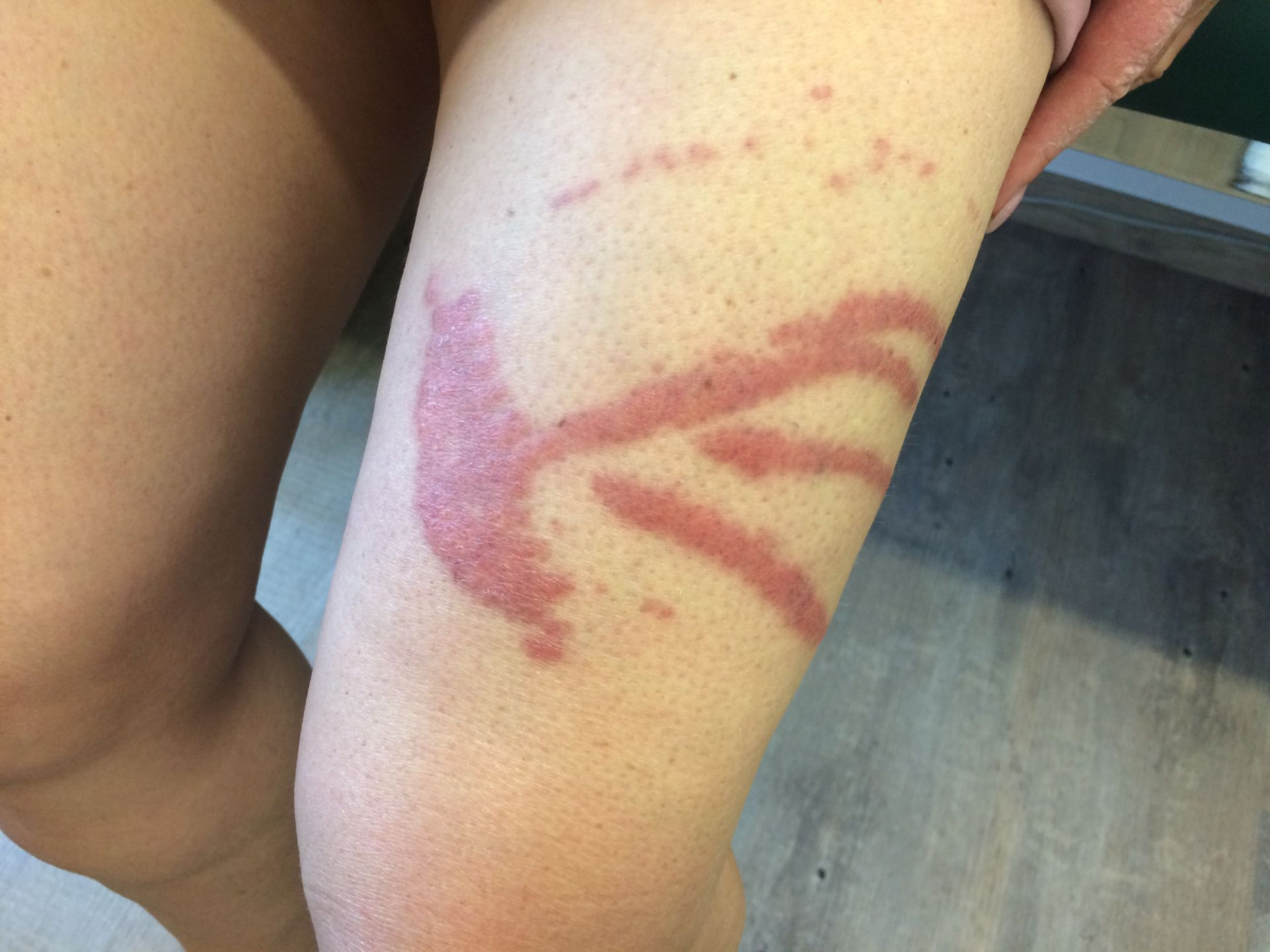 Nesselverletzung durch Quallenkontakt
