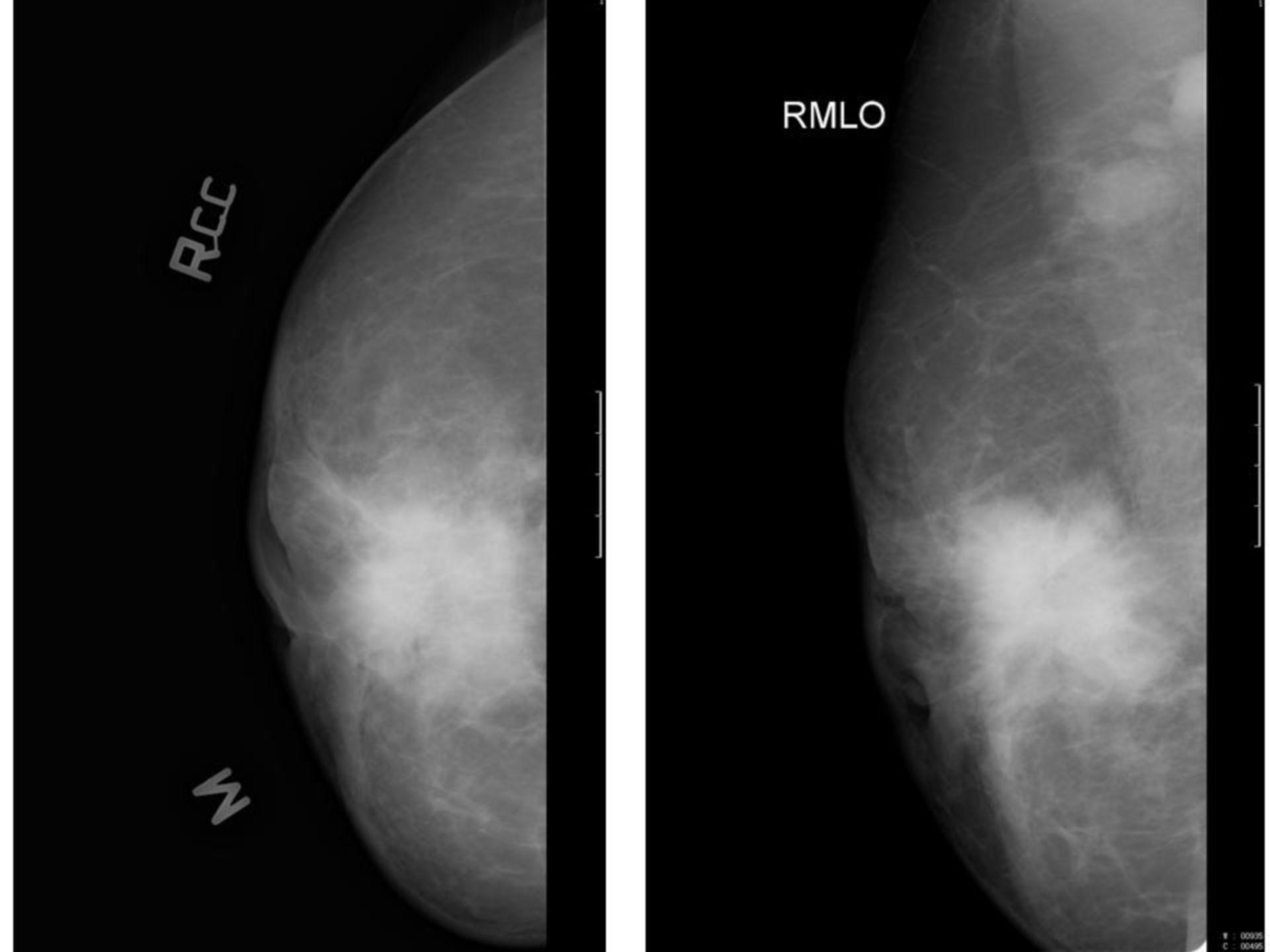 Brustkrebs (Mammographie)