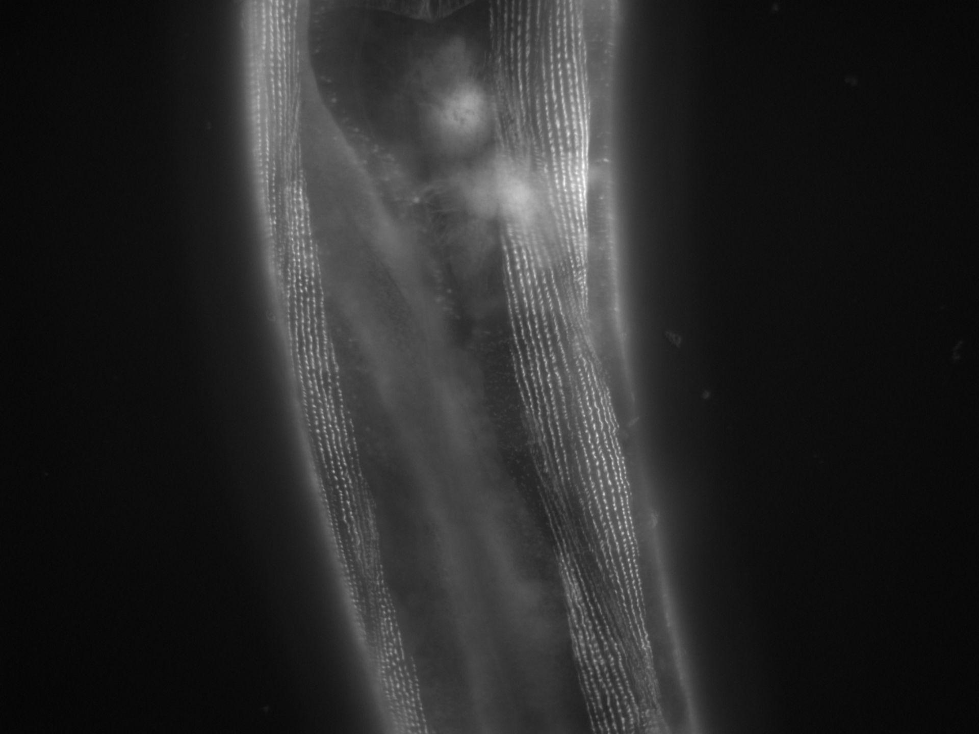 Caenorhabditis elegans (Actin filament) - CIL:1138
