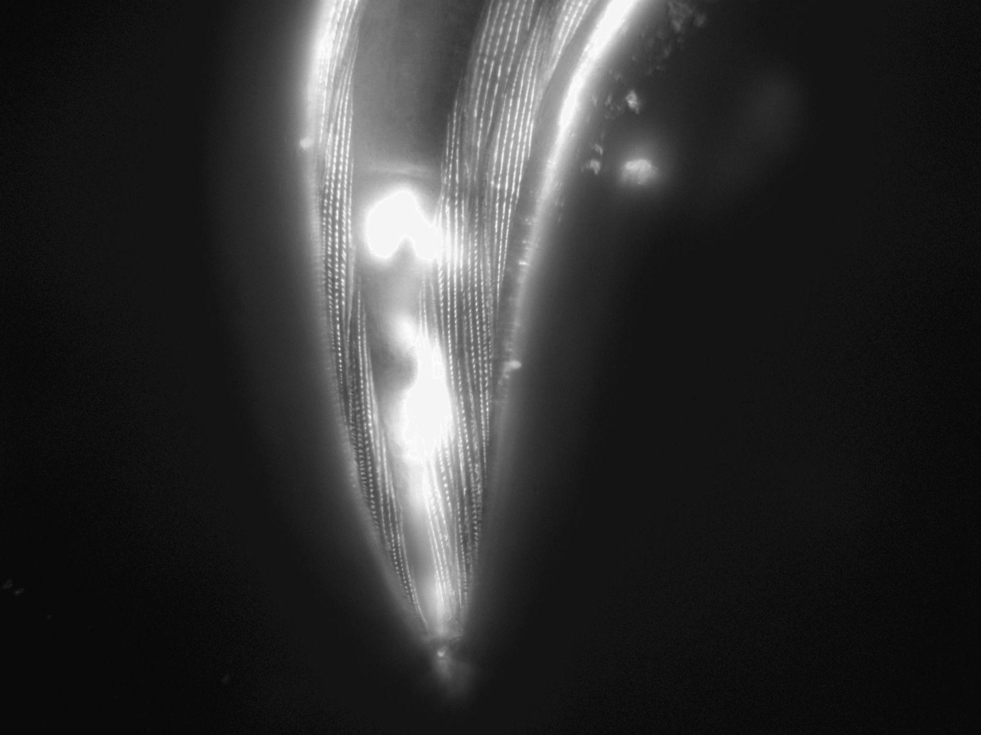 Caenorhabditis elegans (Actin filament) - CIL:1199