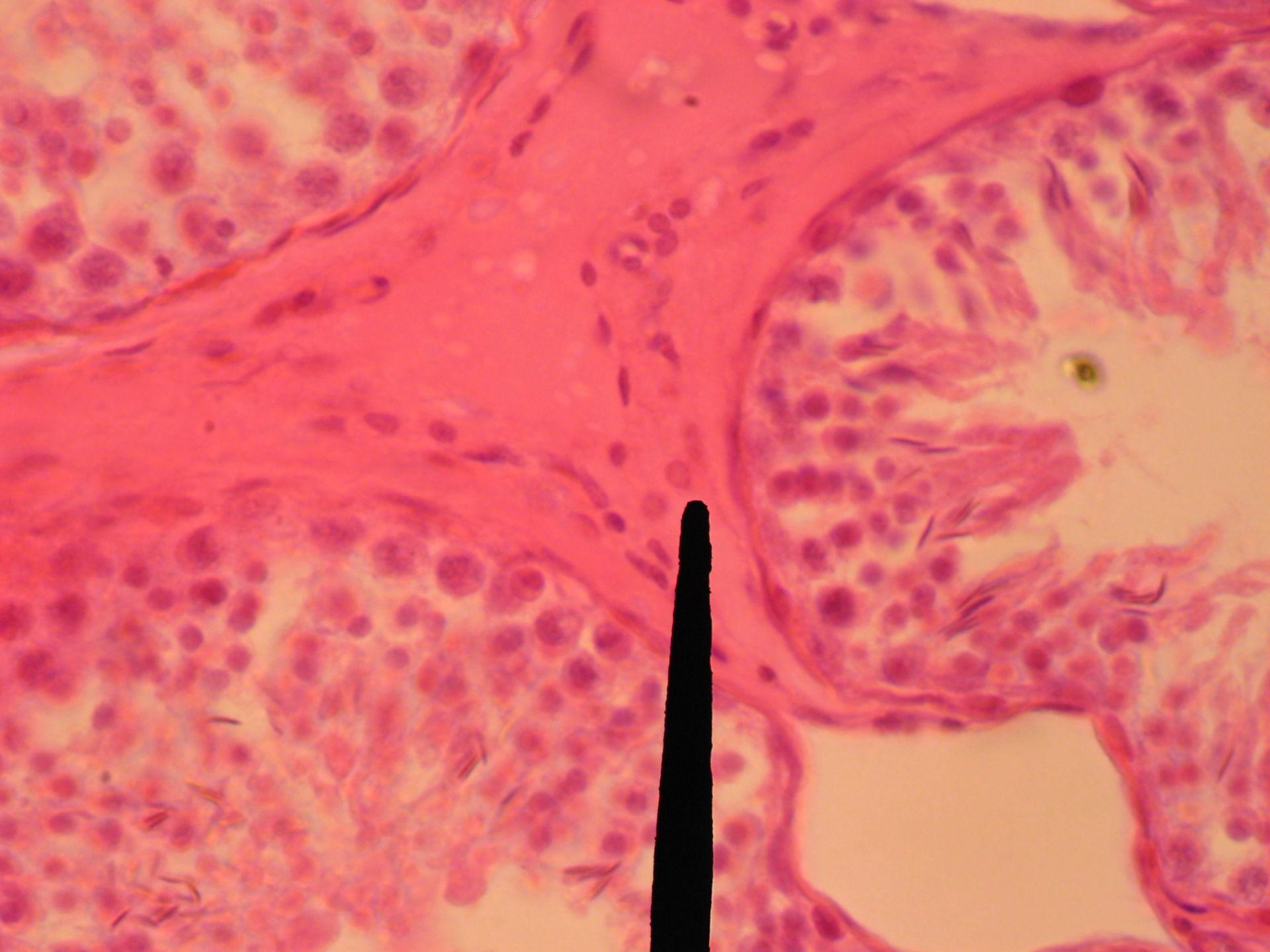 Hoden des Bullen (2) - Bindegewebe mit Leydig-Zelle