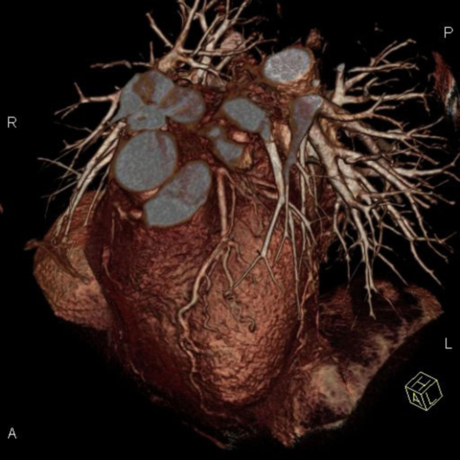 Heart reconstruction