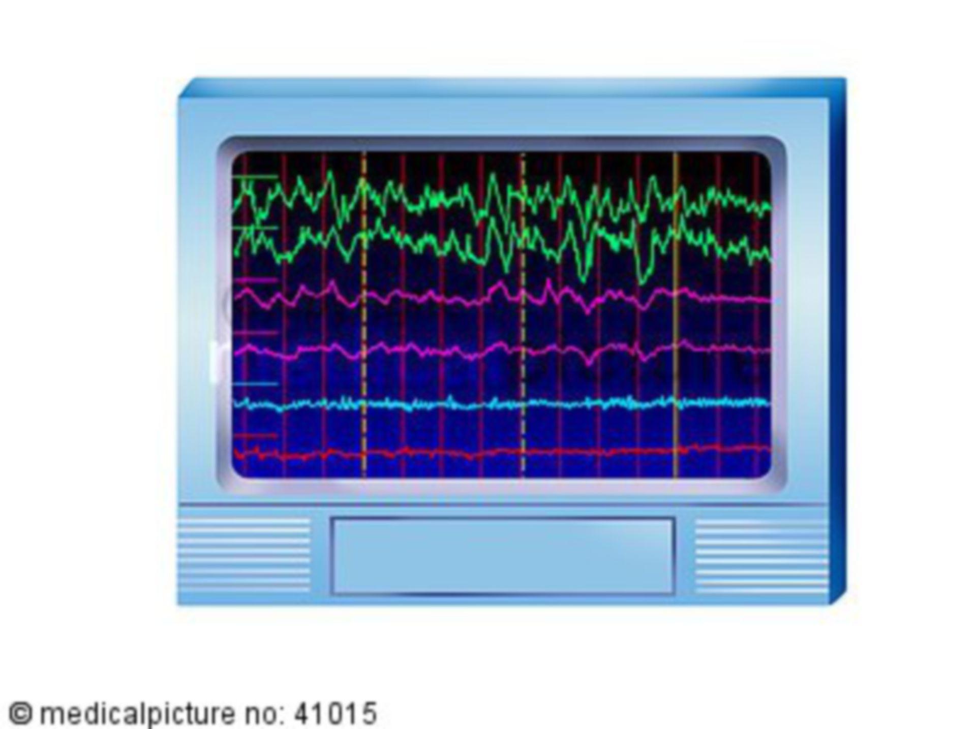EEG, 6 Ableitungen, gesund, electroaencephalography