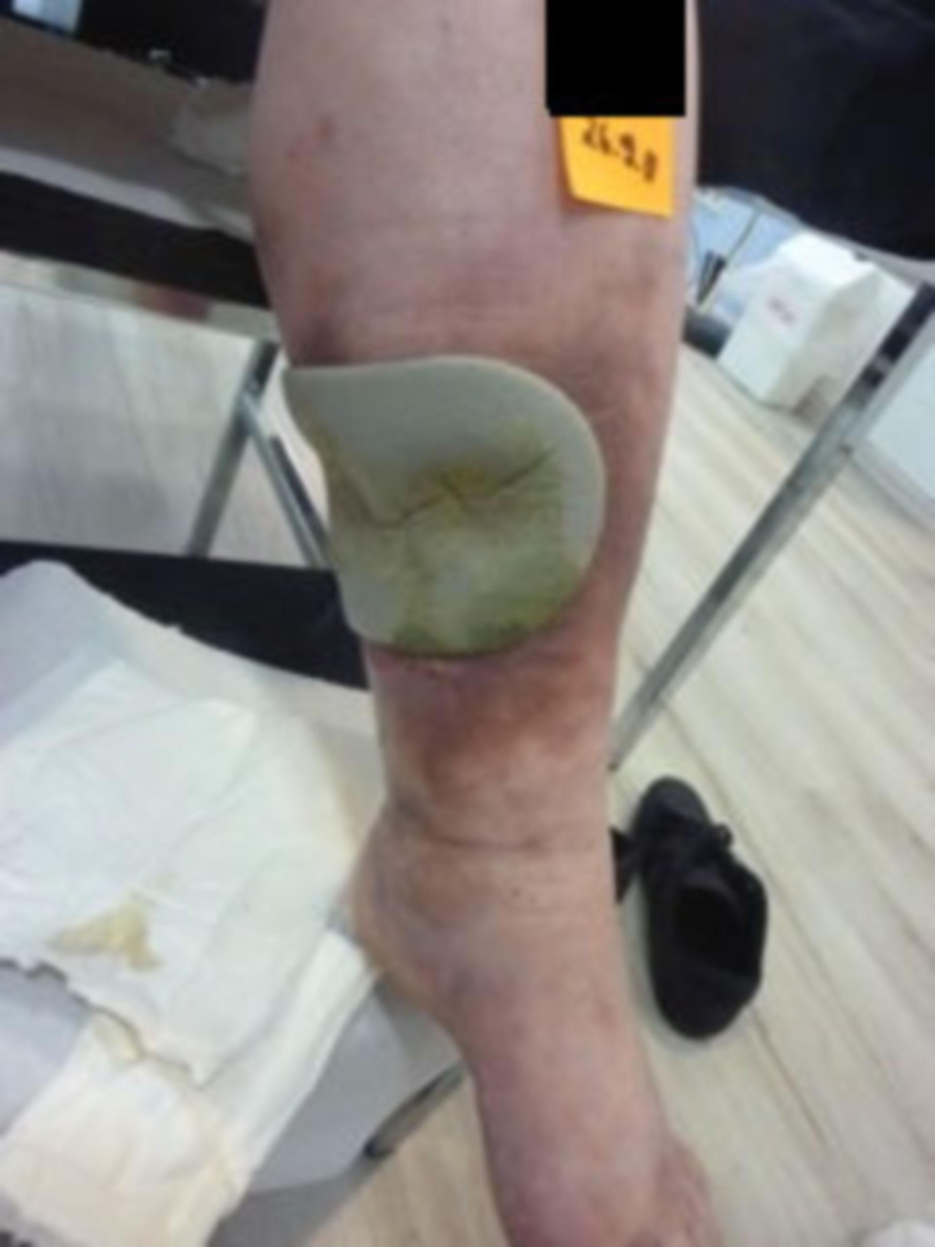 Úlcera de la pierna, abierta por 7 años (8) - cuidado dudoso de heridas