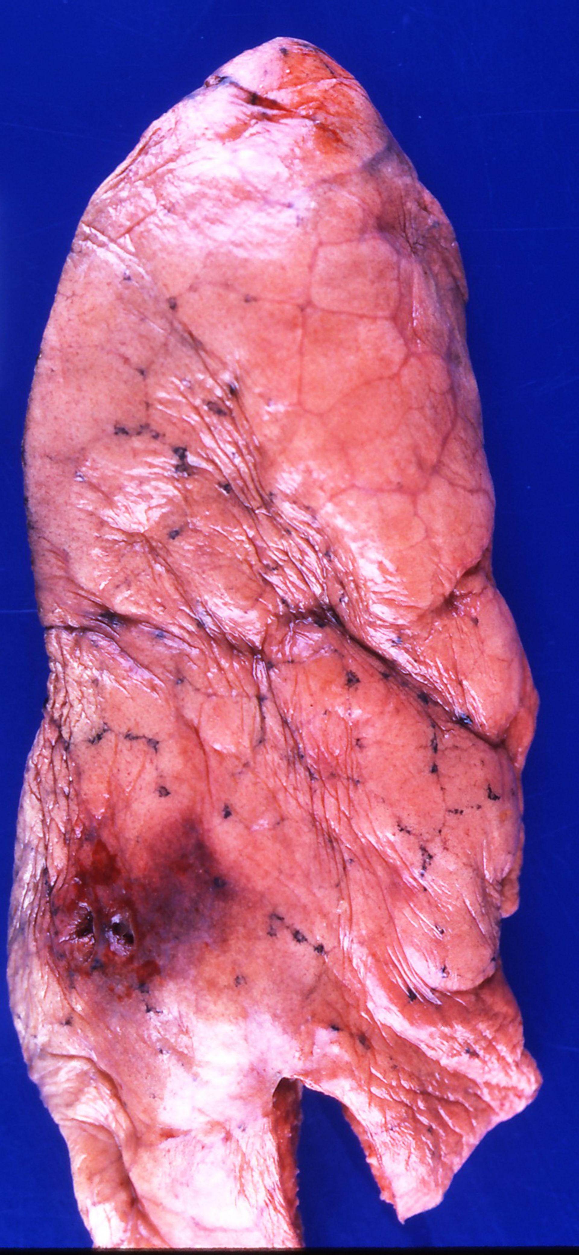 Specimen: lung, status asthmaticus