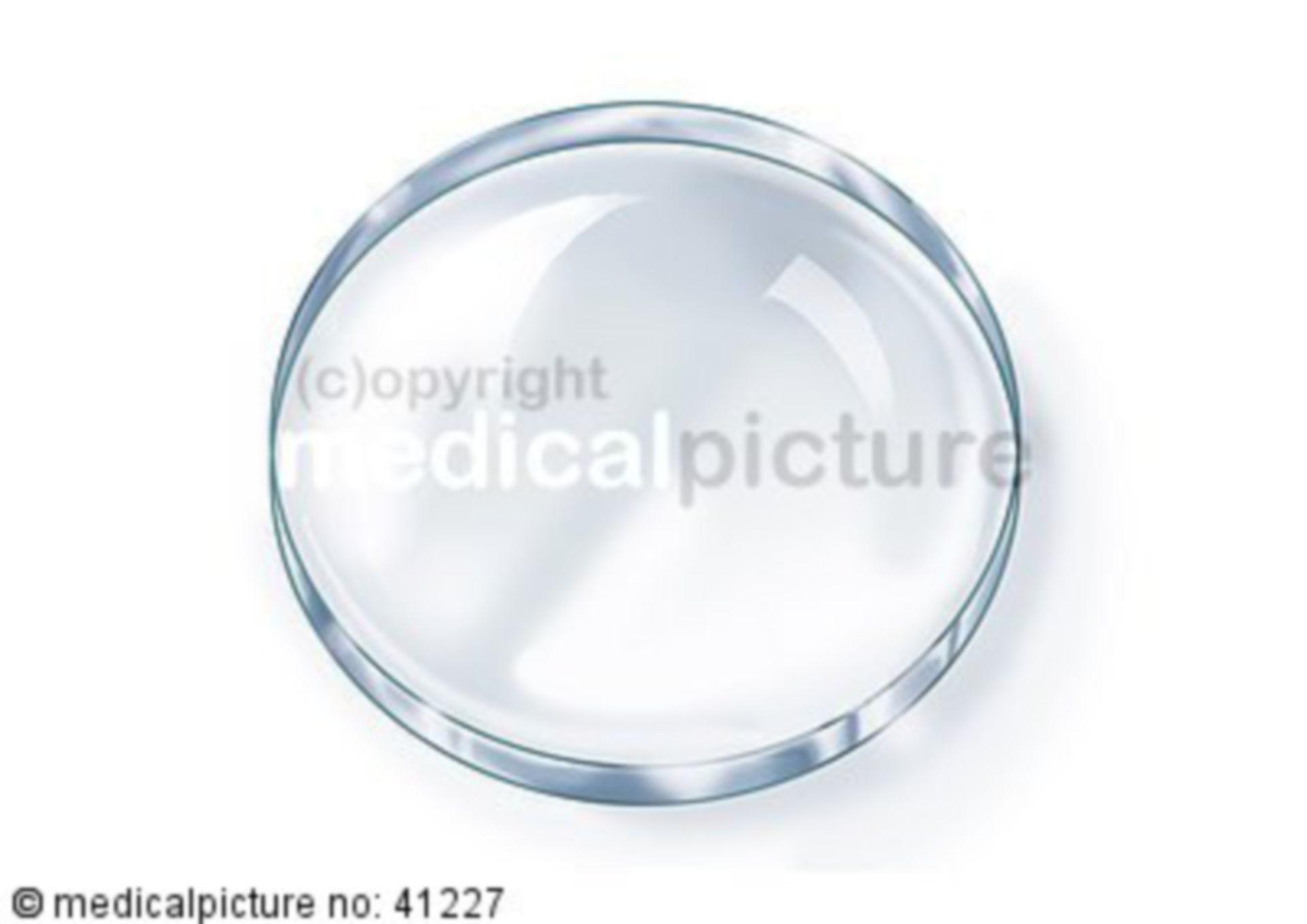 Grafik Petri-Schale