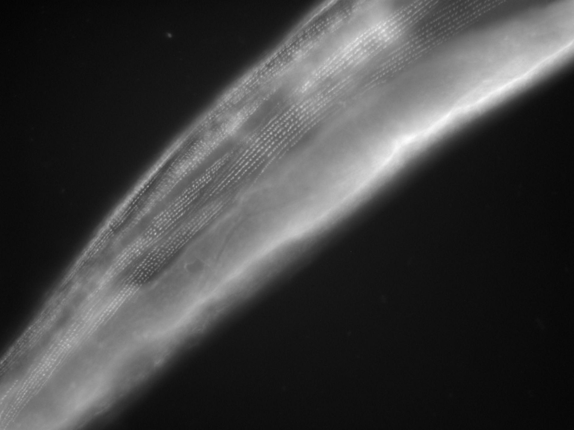Caenorhabditis elegans (Actin filament) - CIL:1264