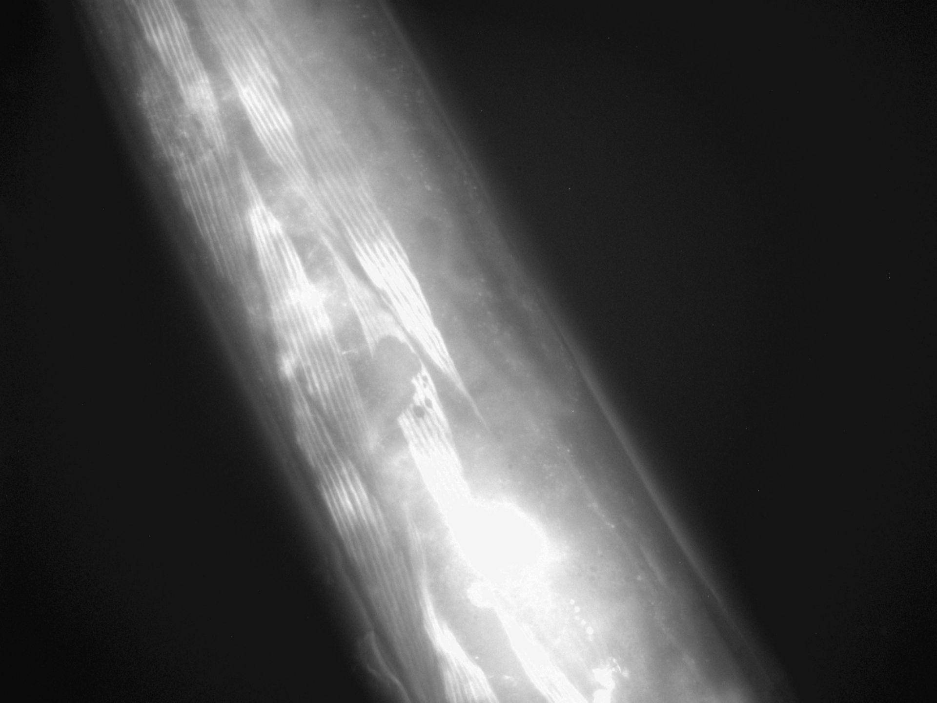 Caenorhabditis elegans (Actin filament) - CIL:1293