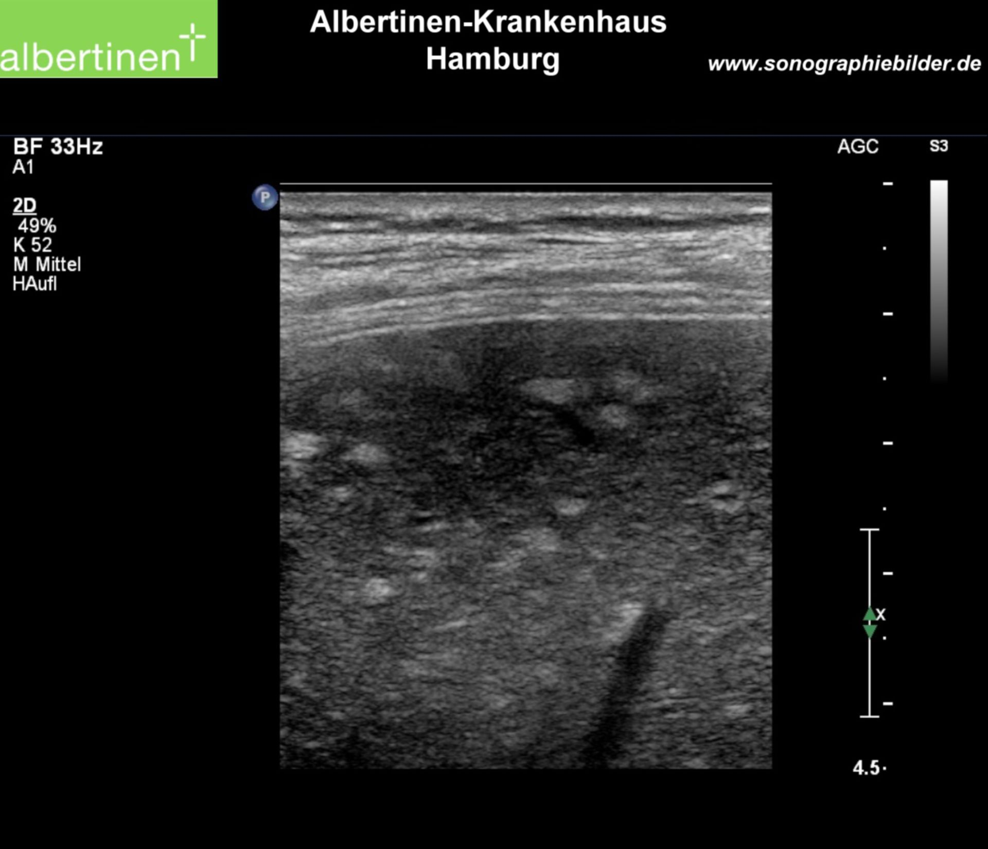 Sonography: Small spotted fatty liver