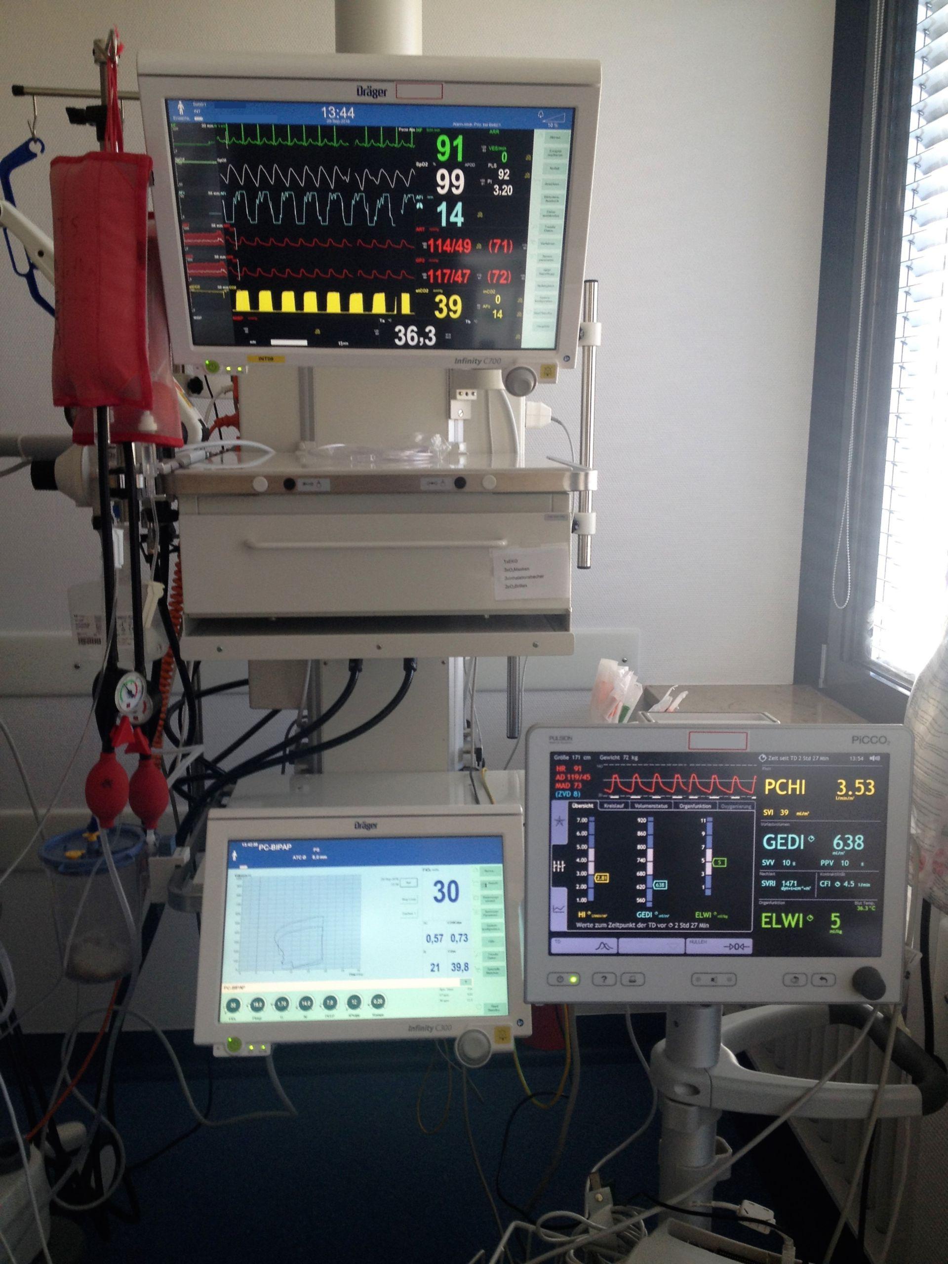 ICU-Monitor