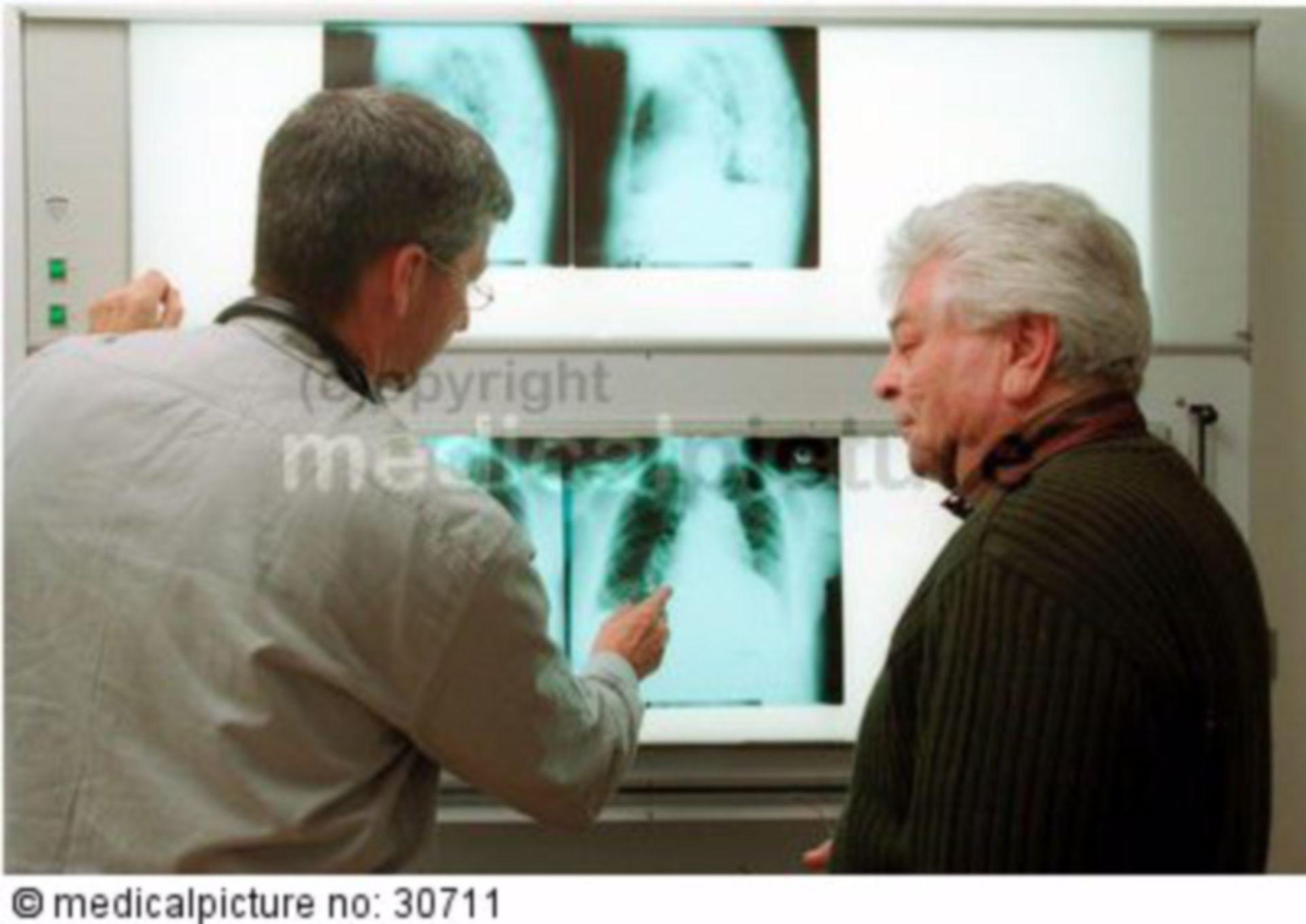 Arzt erklärt Röntgenbild