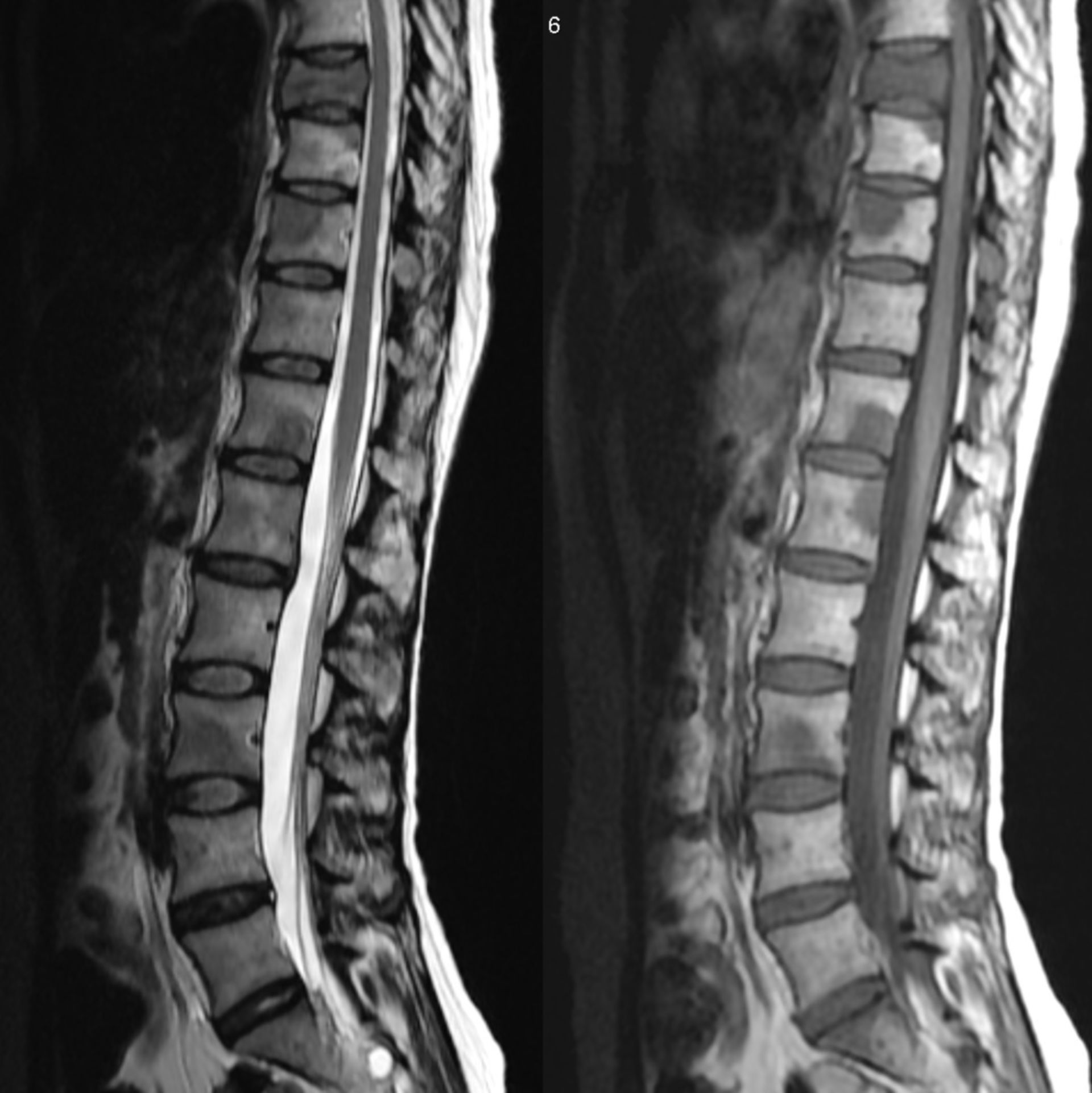 Spinal Metastases from breast carcinoma