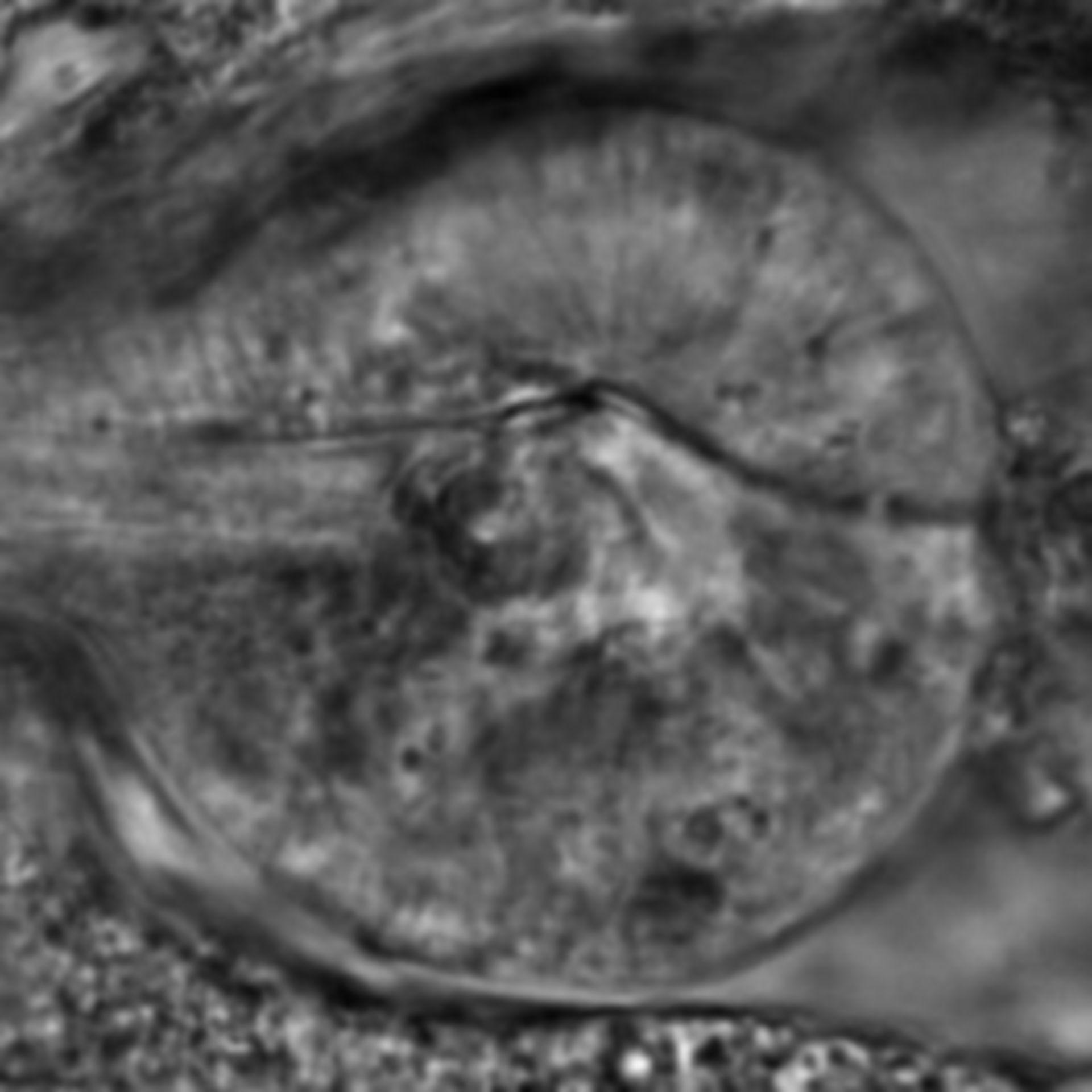 Caenorhabditis elegans - CIL:2681