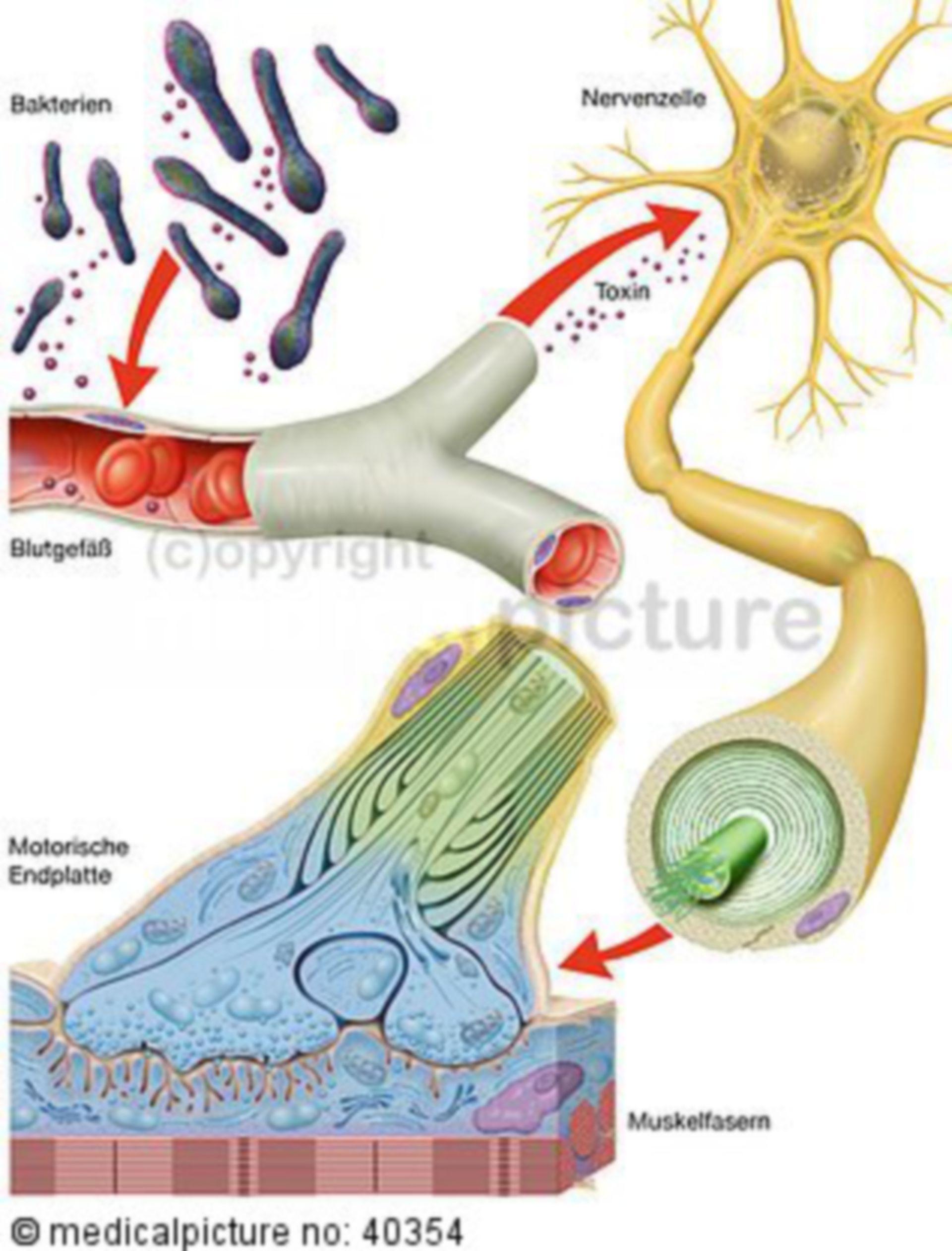 Clostridium tetani, tetanus: Path of infection