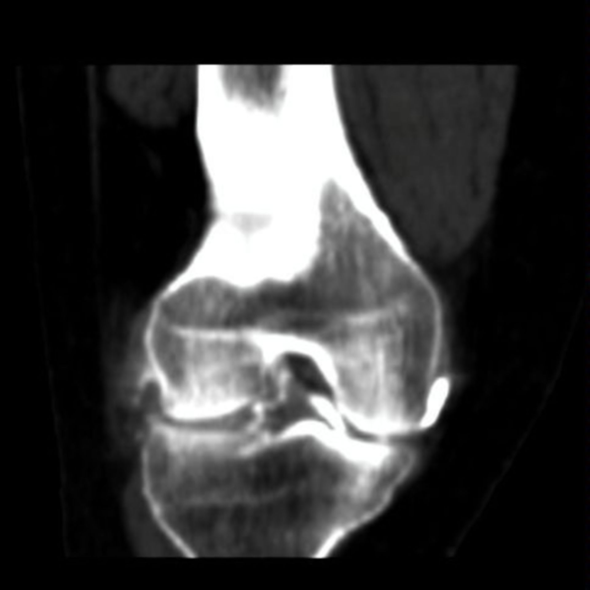 CT of knee joint
