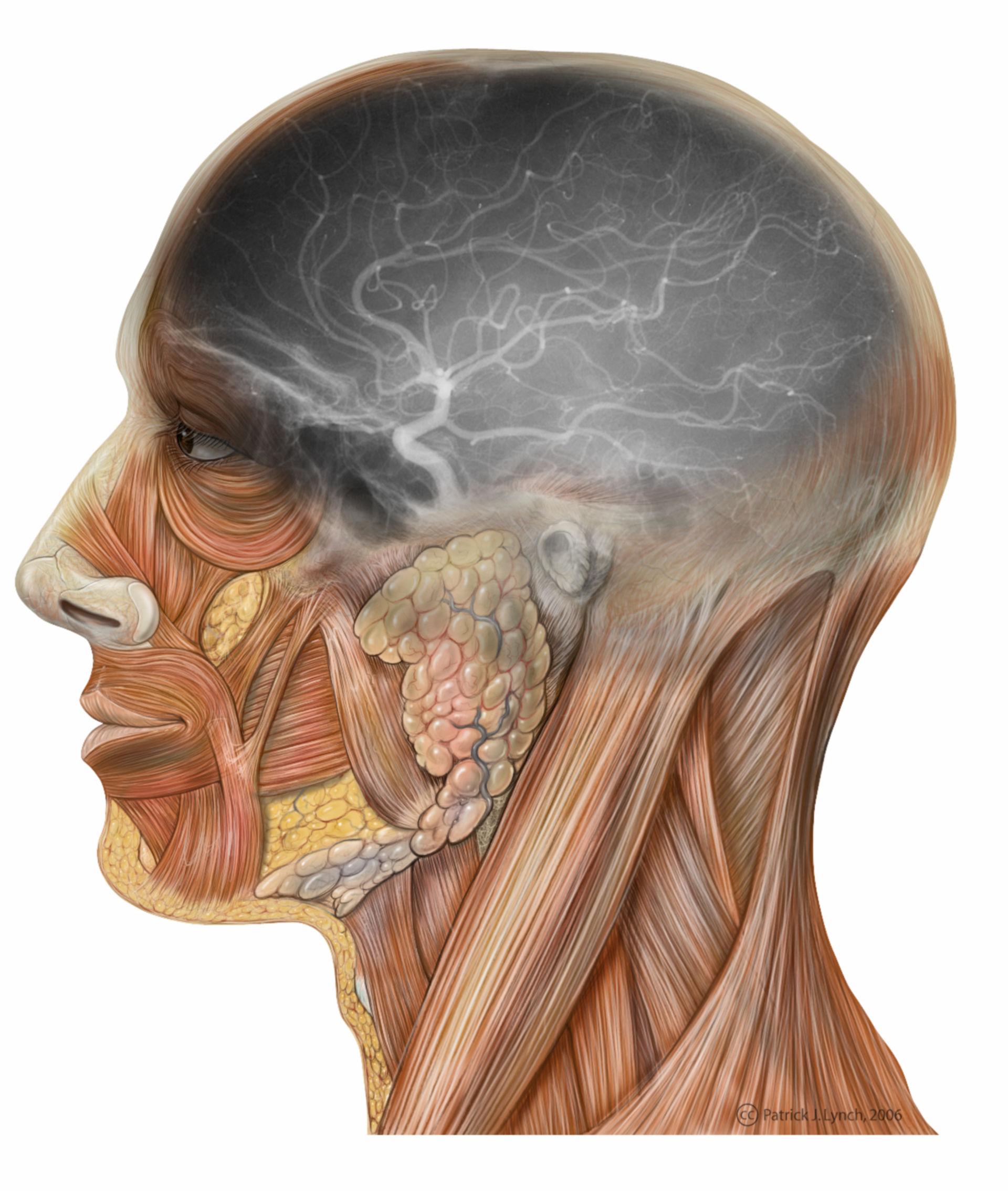 Testa vista laterale con carotide interna
