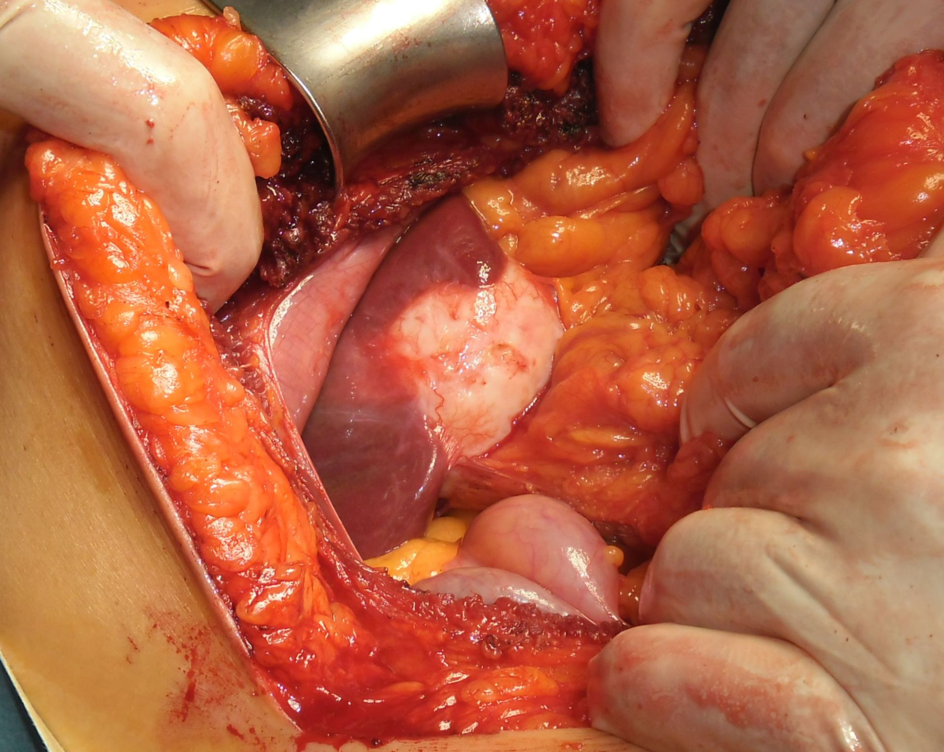 Vesícula biliar (2)