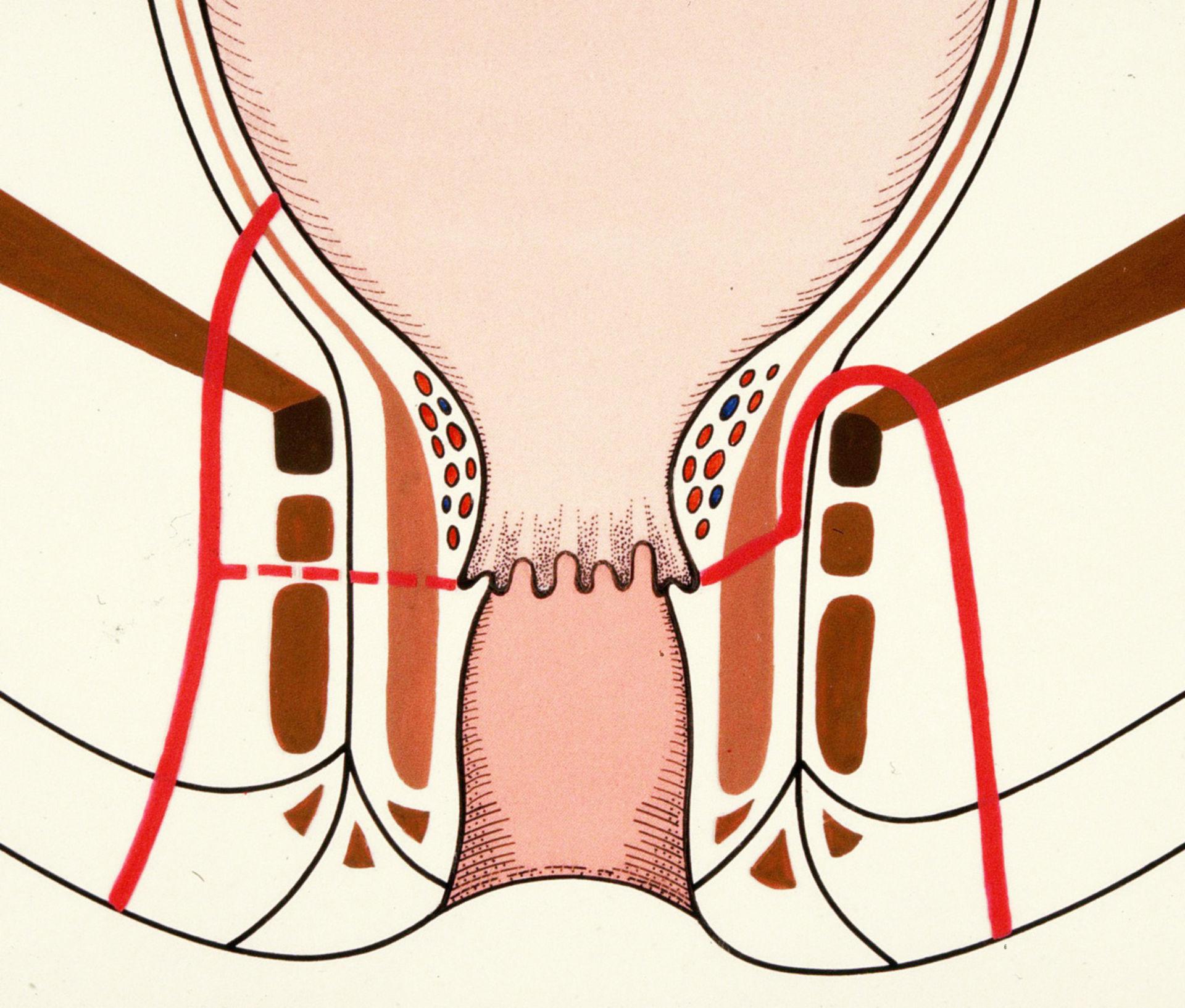 Fístula extraesfinteriana (dibujo esquemático)