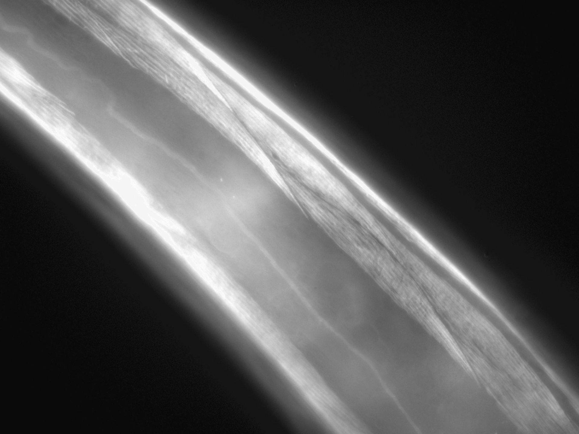 Caenorhabditis elegans (filamento di actina) - CIL:1286