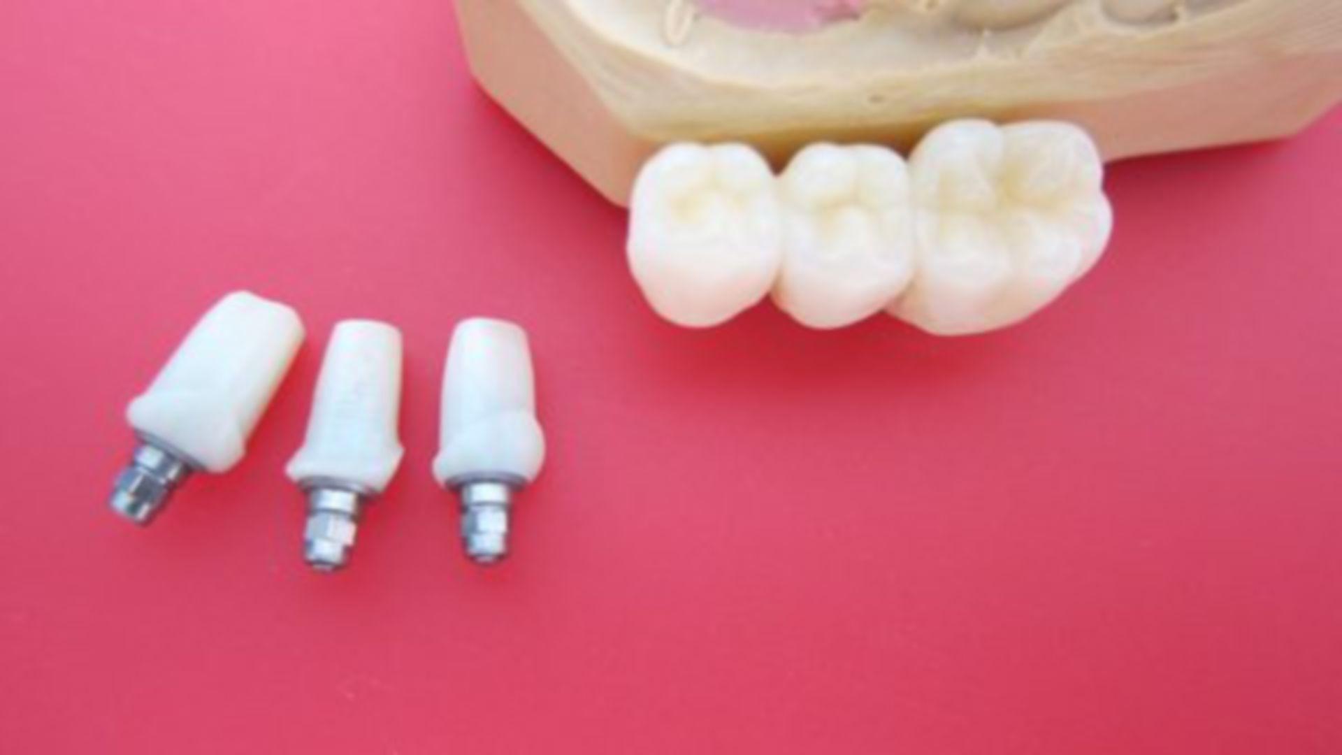 Vollzirkonoxid Implantataufbauten