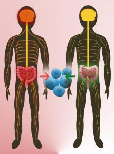 Zwillingsstudien zeigen, dass die natürliche Darmflora darauf Einfluss hat, ob ein Mensch an Multipler Sklerose erkrankt (links). Eine zentrale Rolle spielen hierbei T-Zellen (blau). © MPI f. Biochemie/ Menzfeld