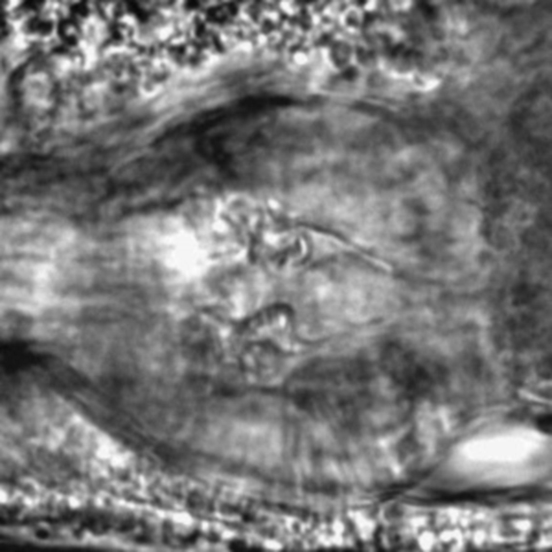 Caenorhabditis elegans - CIL:1942